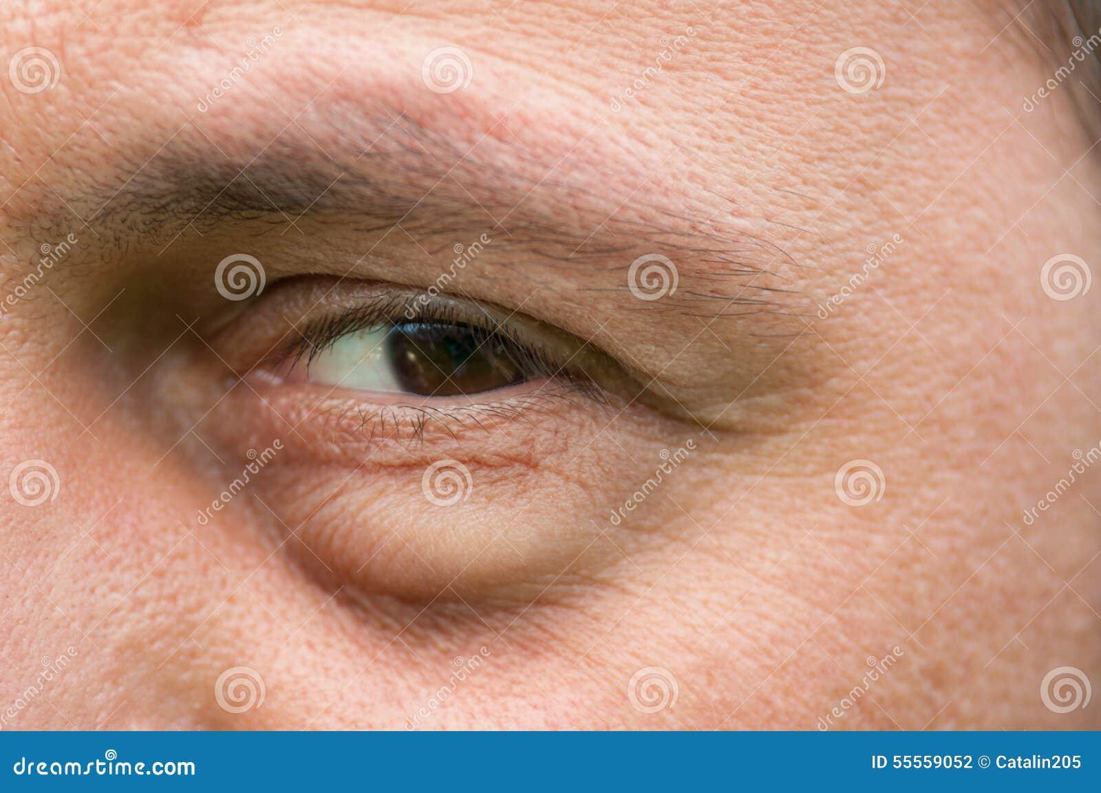 borsa sotto un solo occhio