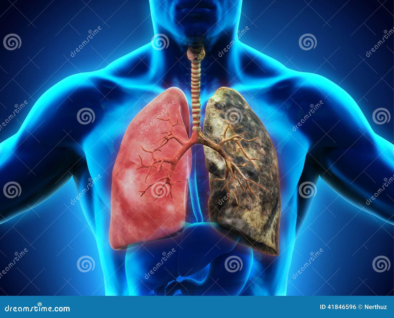 Pulmão saudável e pulmão dos fumadores