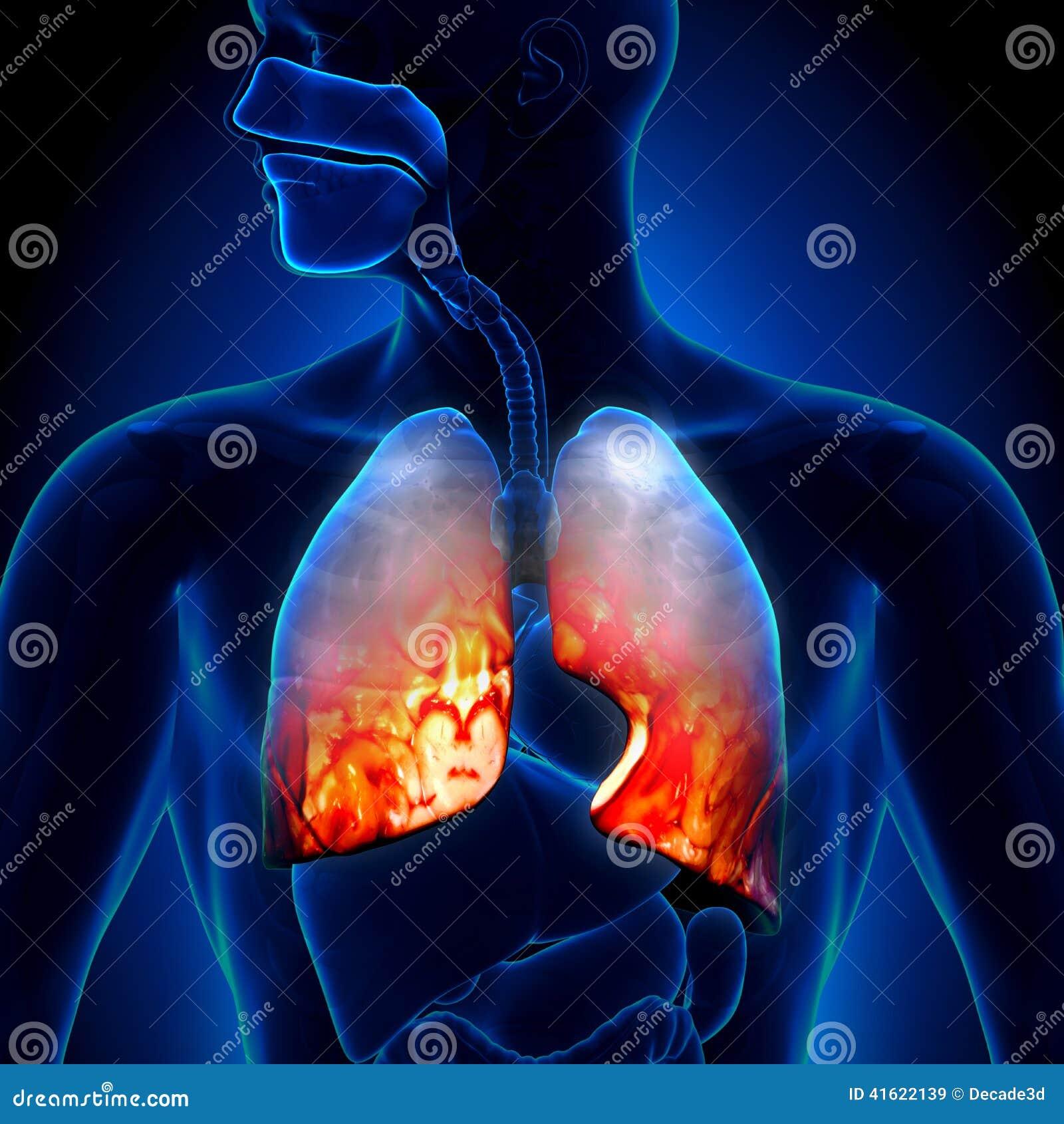 Pulmonía - Condición Inflamatoria De Los Pulmones - Anatomía Stock ...