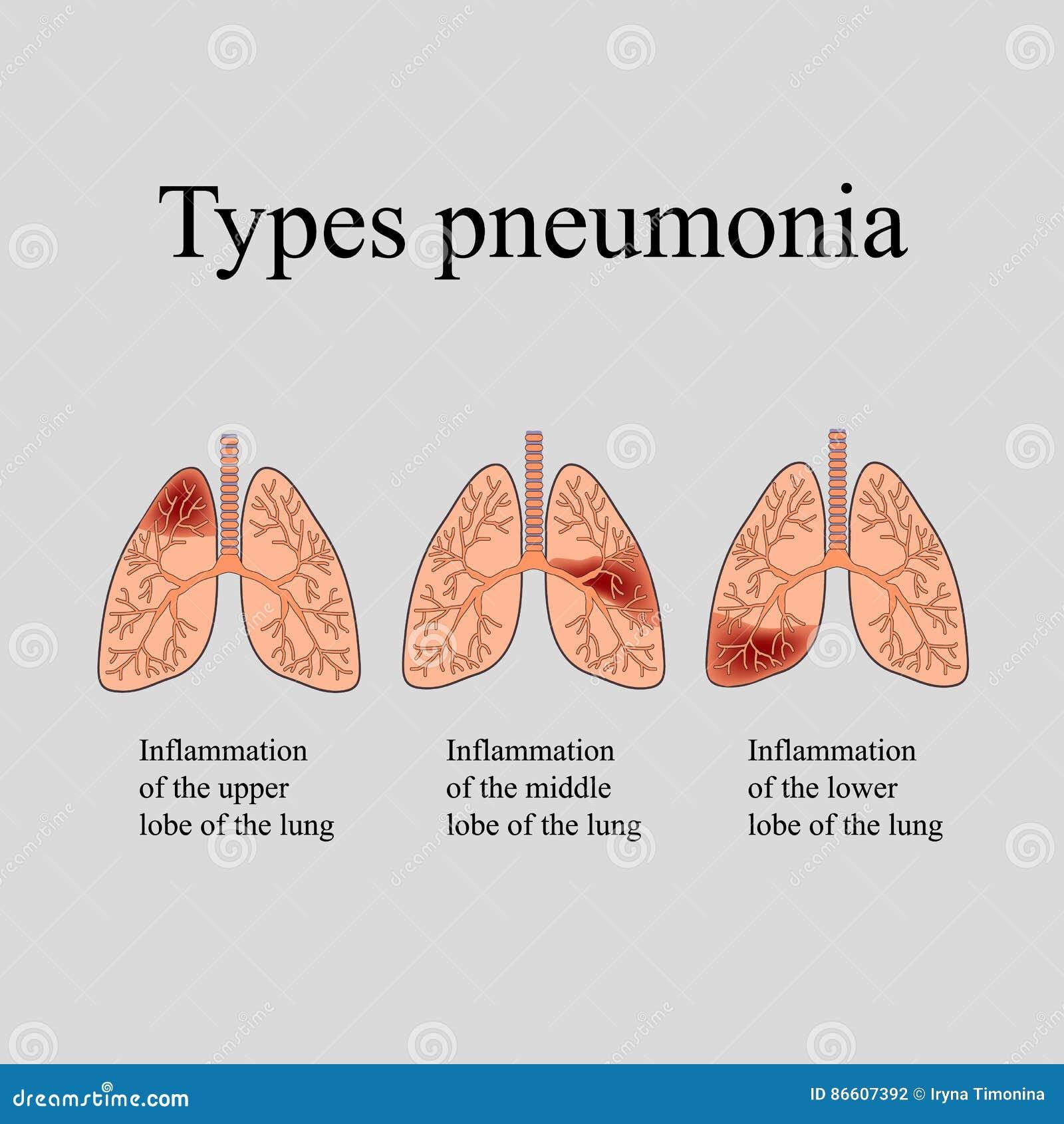 Pulmonía La Estructura Anatómica Del Pulmón Humano Tipo De Pulmonía ...