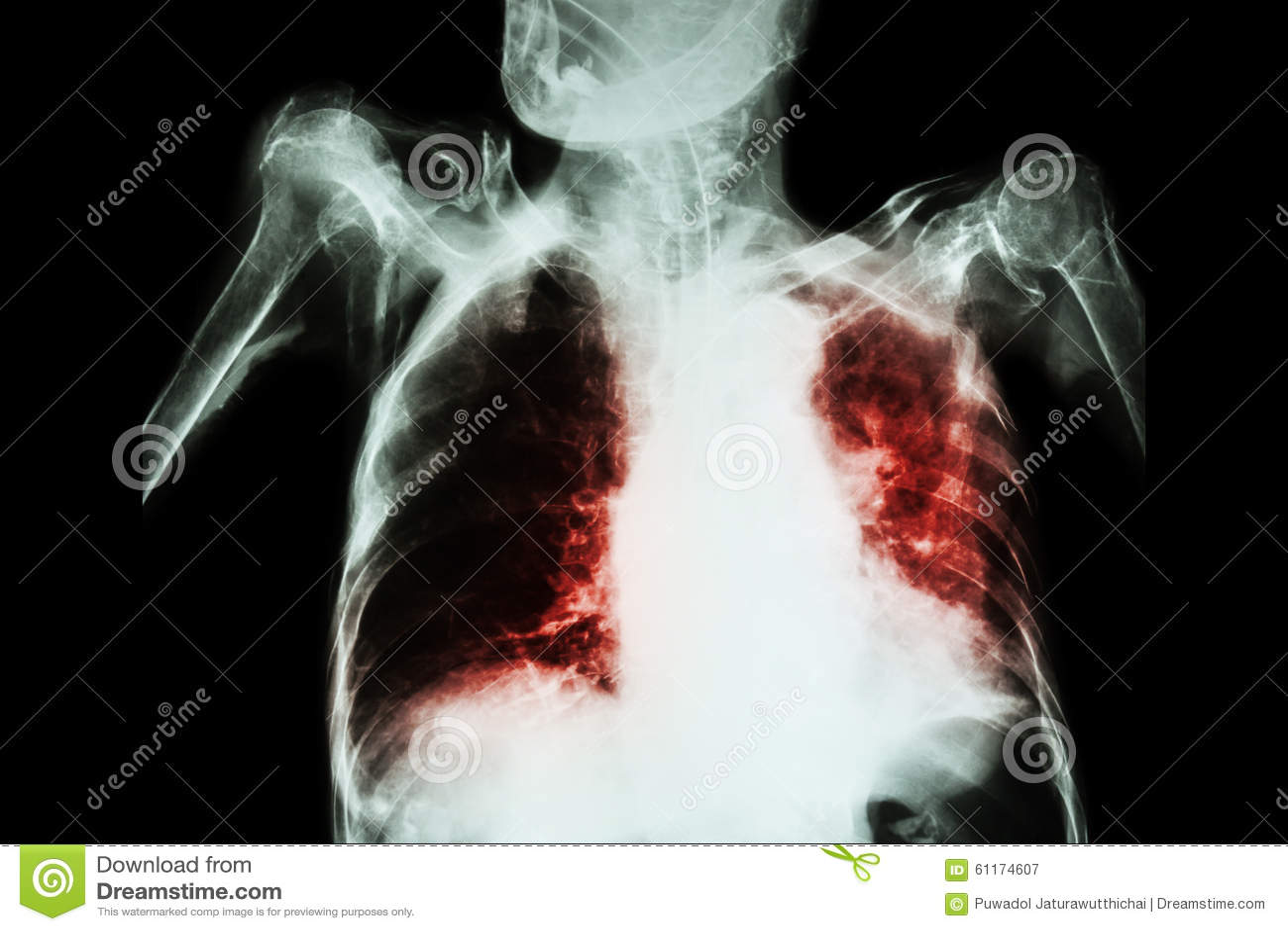 Pulmonary Tuberculosis ( TB ) : Chest X-ray Show Alveolar ...