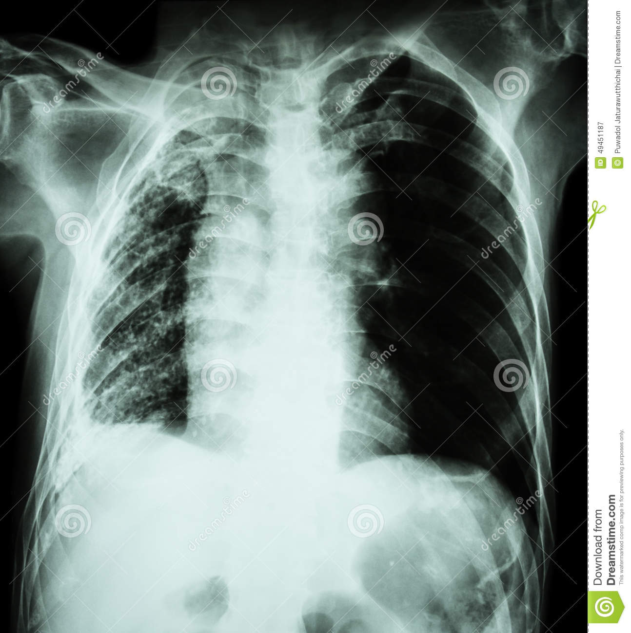 Pulmonary Tuberculosis . Chest X-Ray : Right Lung