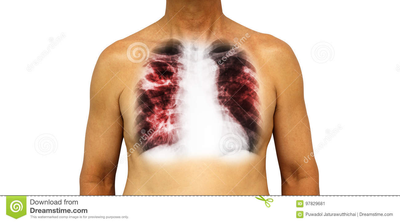 Pulmonary Tuberculosis . Human Chest With X-ray Show Cavity At Right ...