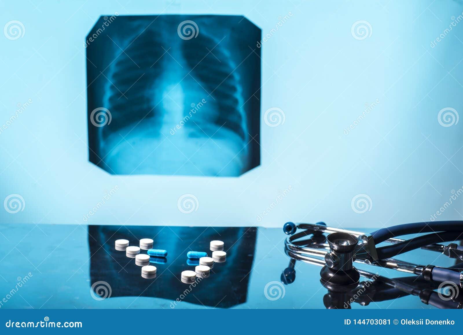 Pulmonary tuberculosis treatment concept. Medical still life pills stethoscope x-ray