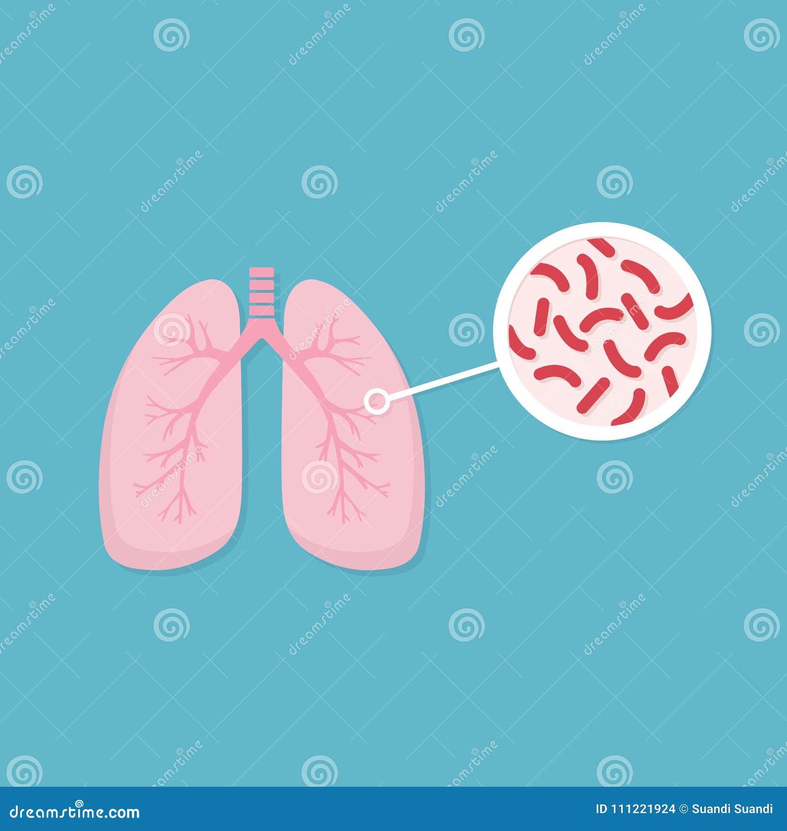 Pulmones De La Persona Infectada Primer De La Tuberculosis De ...