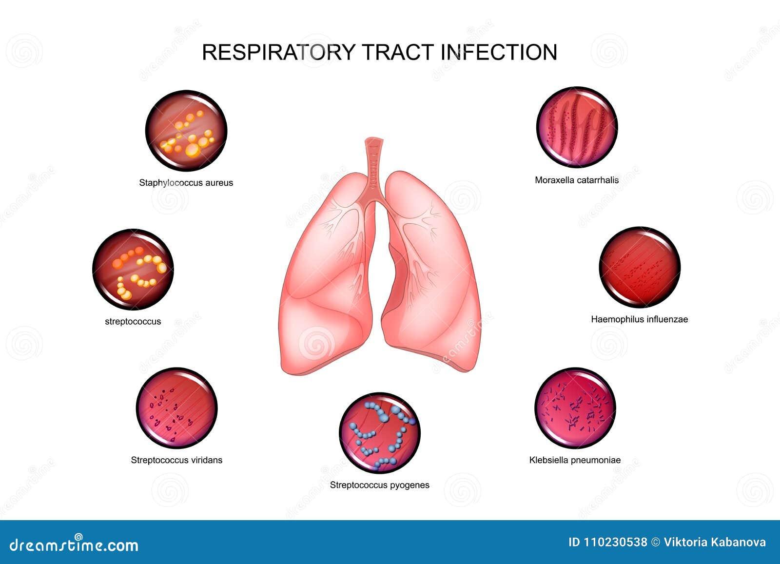 Pulmones E Infecciones De Las Vías Respiratorias Ilustración del ...