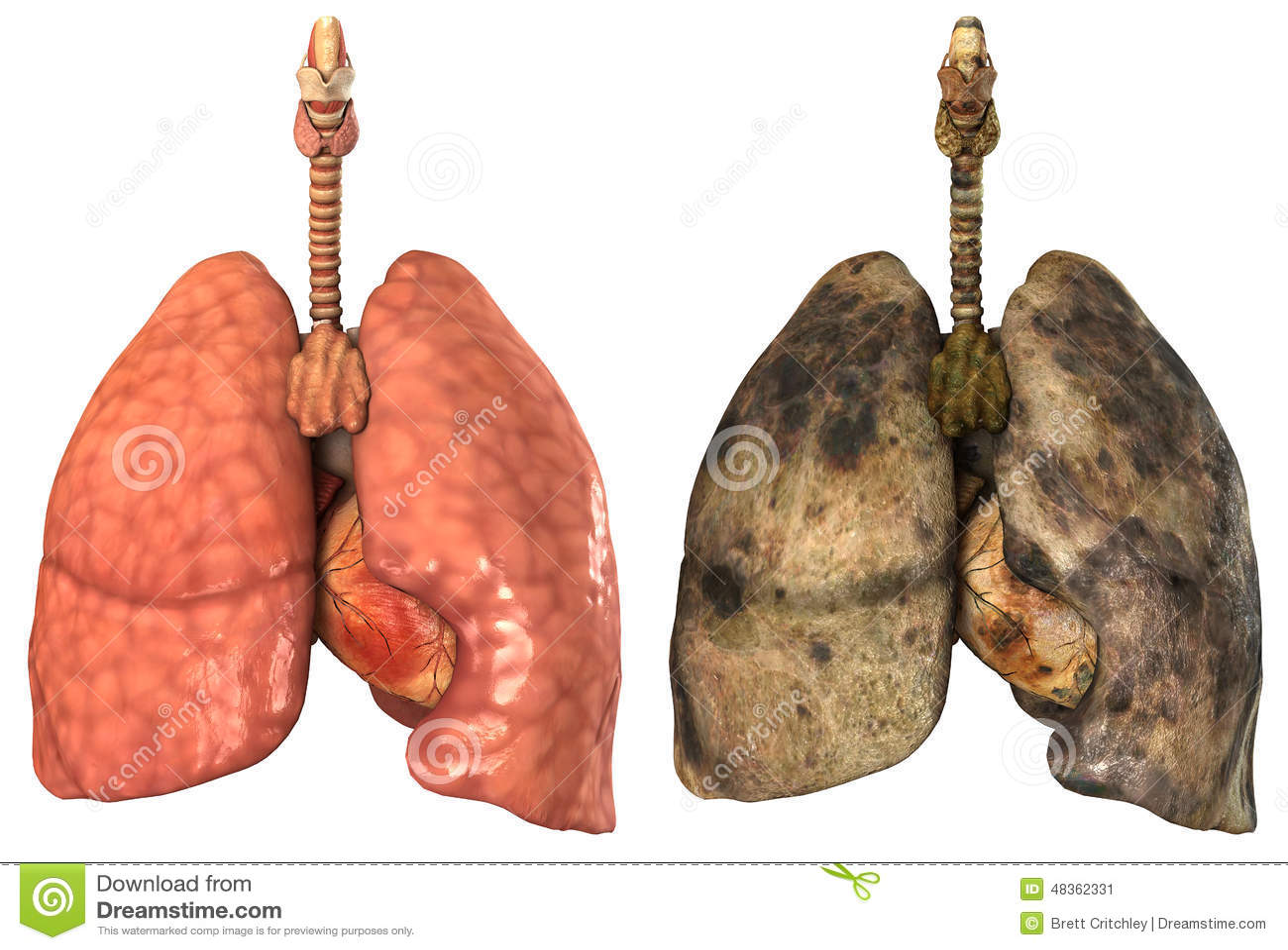 Pulmones humanos sanos y enfermos