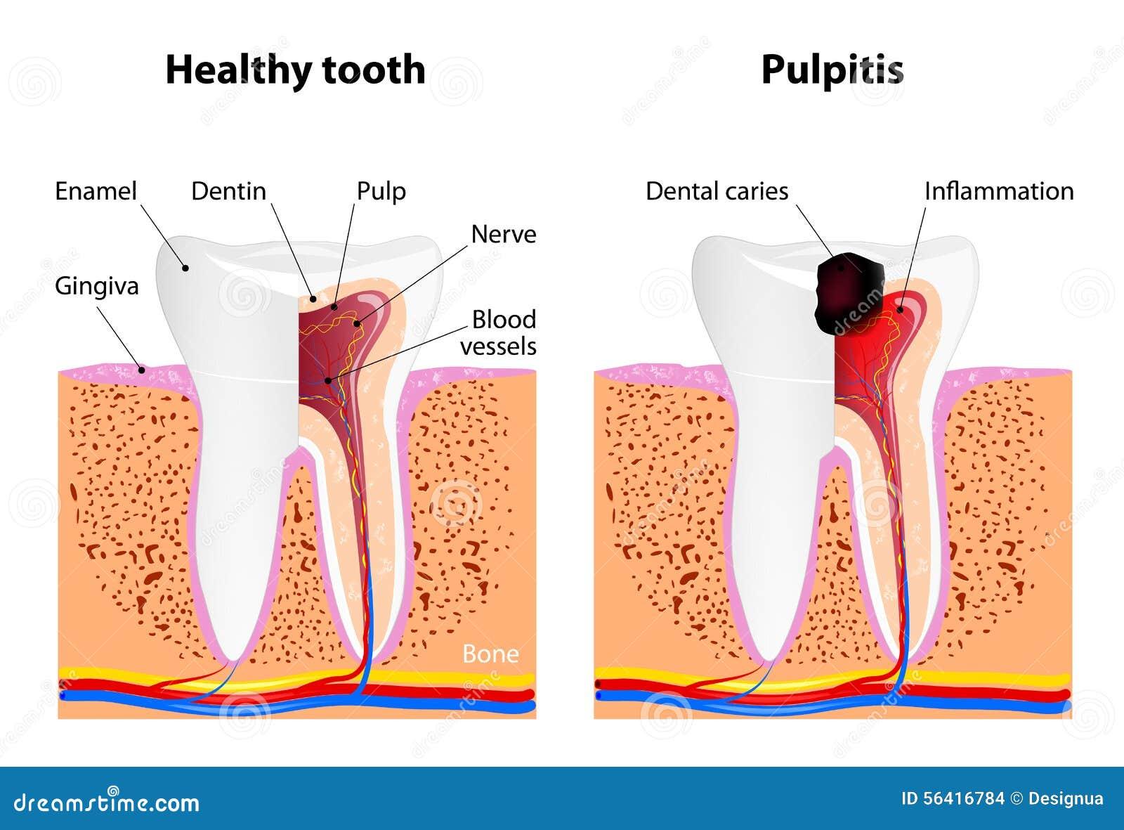 Pulpitis och sund tand