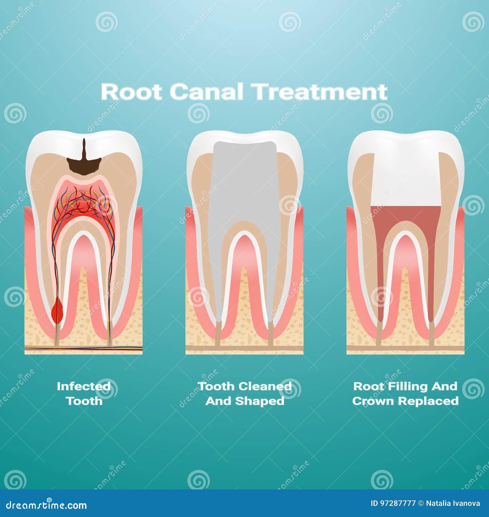 Pulpitis terapia de la endodoncia La pulpa infectada se quita del diente y el espacio ocupado por él se limpia y se llena de un G