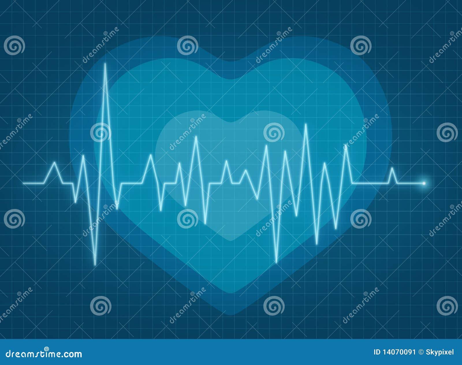 Pulso de ECG