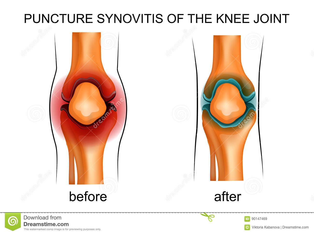 Puncture Synovitis Of The Knee Joint Stock Vector Illustration Of