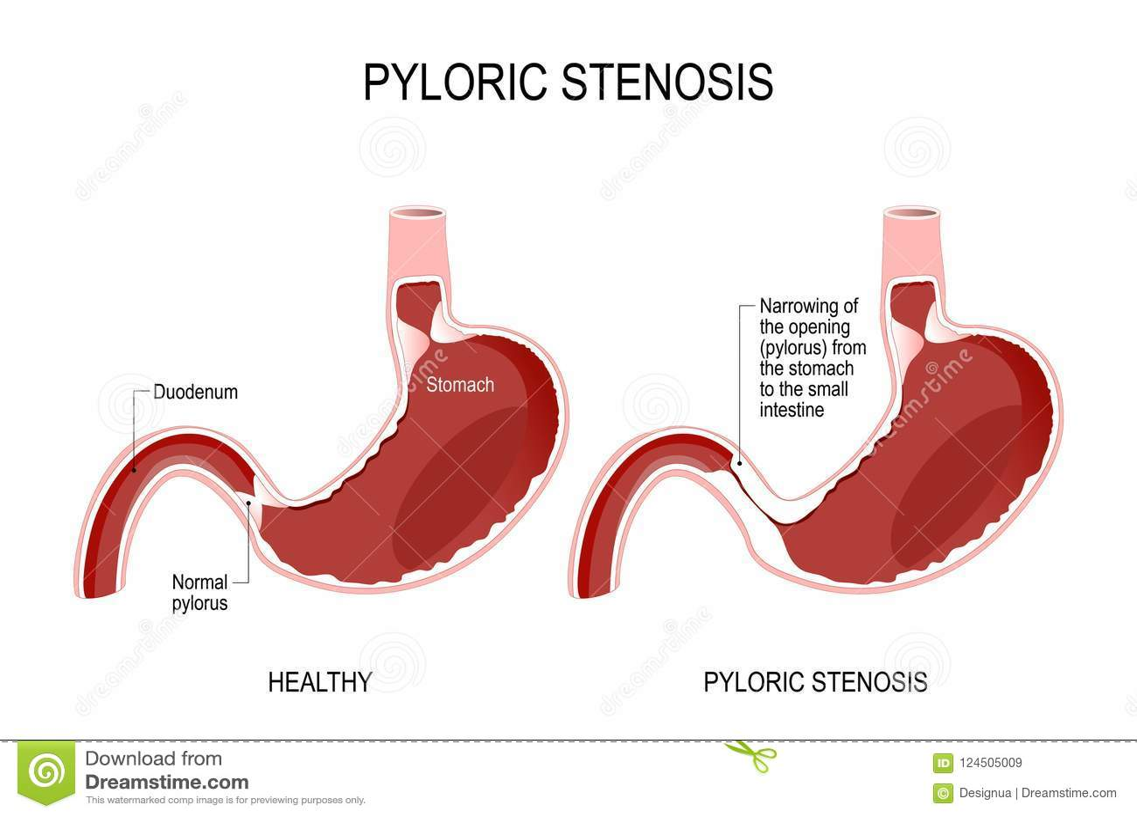 Pyloric Stenosis Stock Vector Illustration Of Intestine 124505009