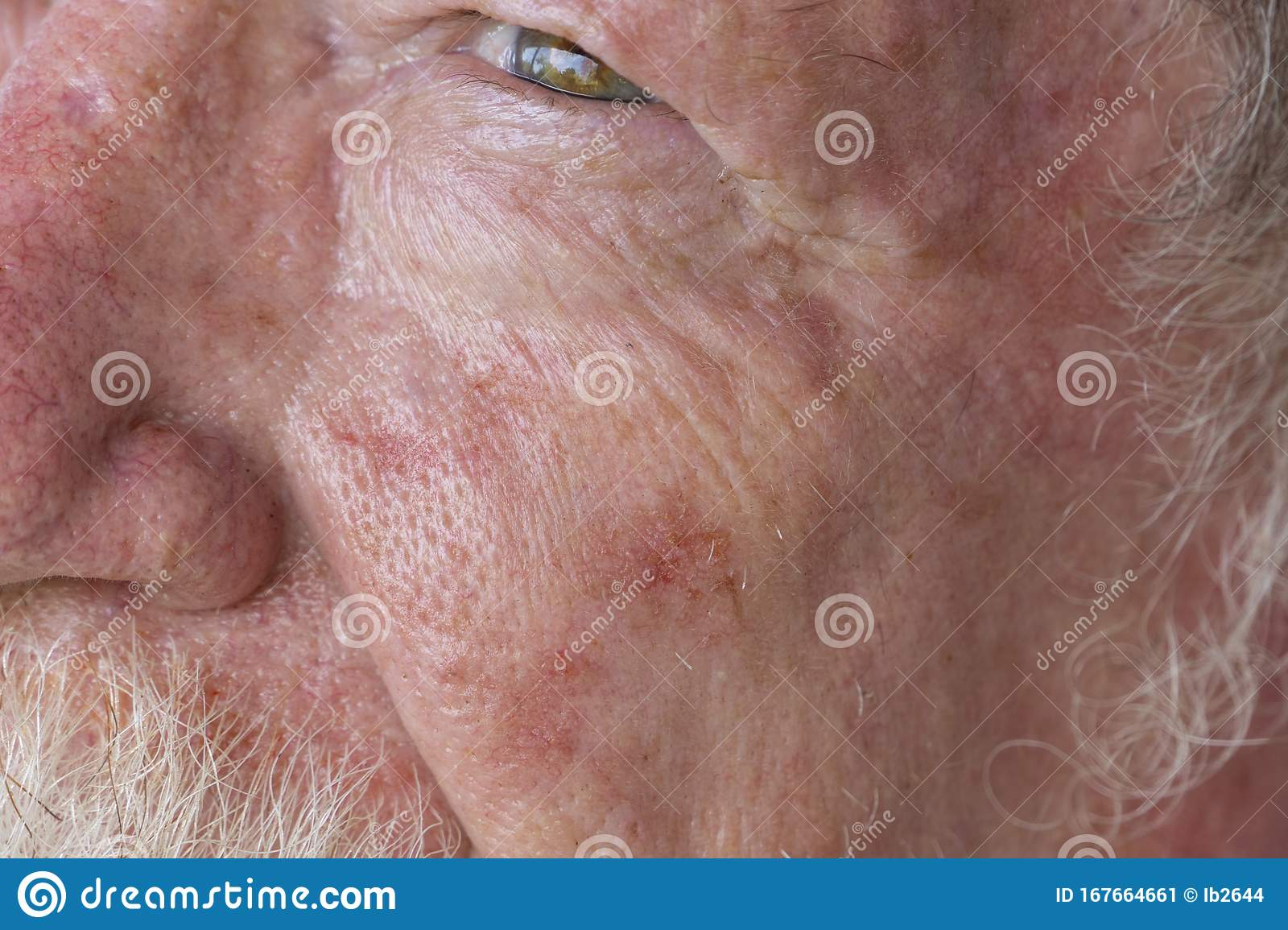 Old Man With Skin Cancer On Face Stock Image Image Of Face Ointment 167664661