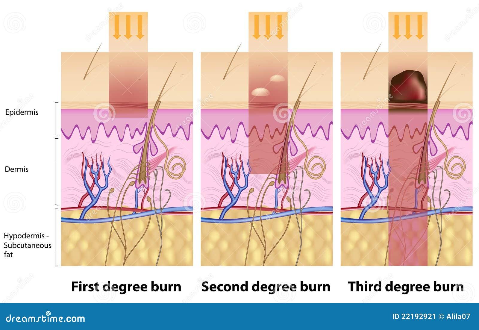 Quemaduras de la piel ilustración del vector. Ilustración de grado ...