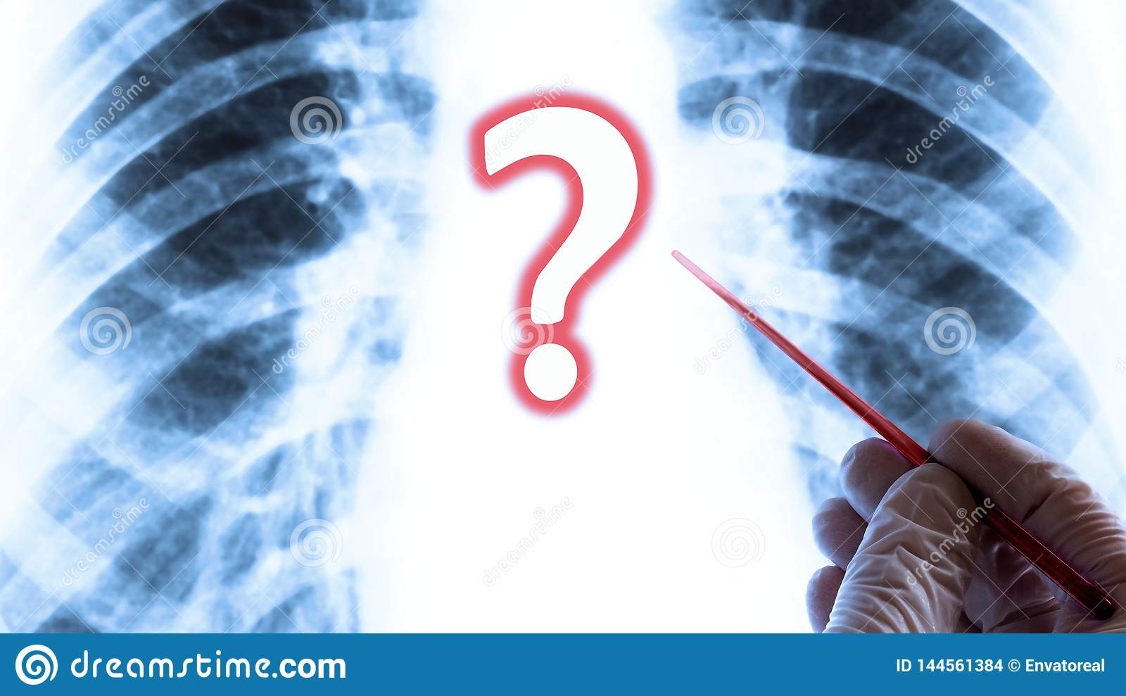 The question of health or lung disease. Medical concept. Hand in glove with a red pointer on the background of chest X-ray.