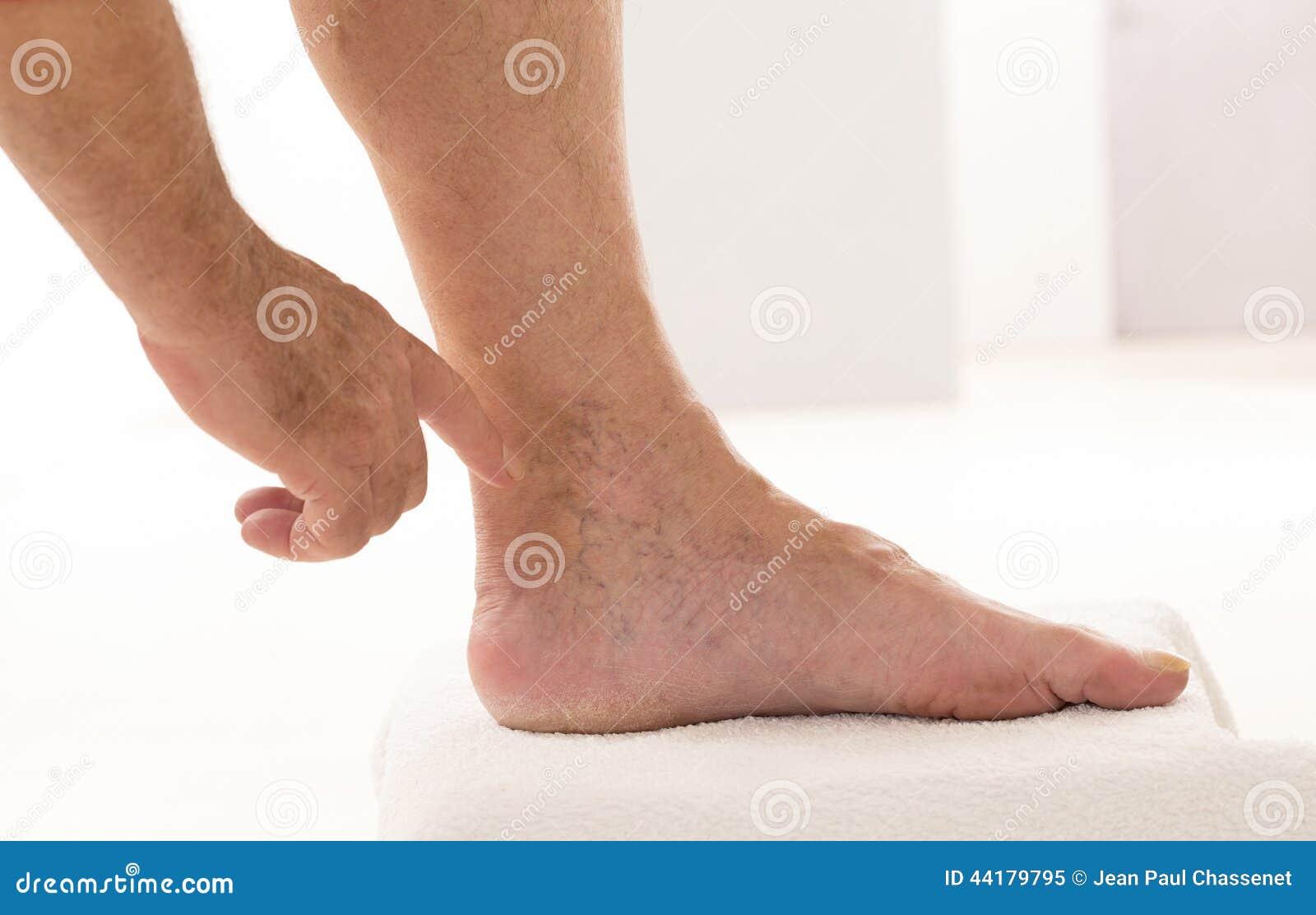 Les ongles des mains au psoriasis