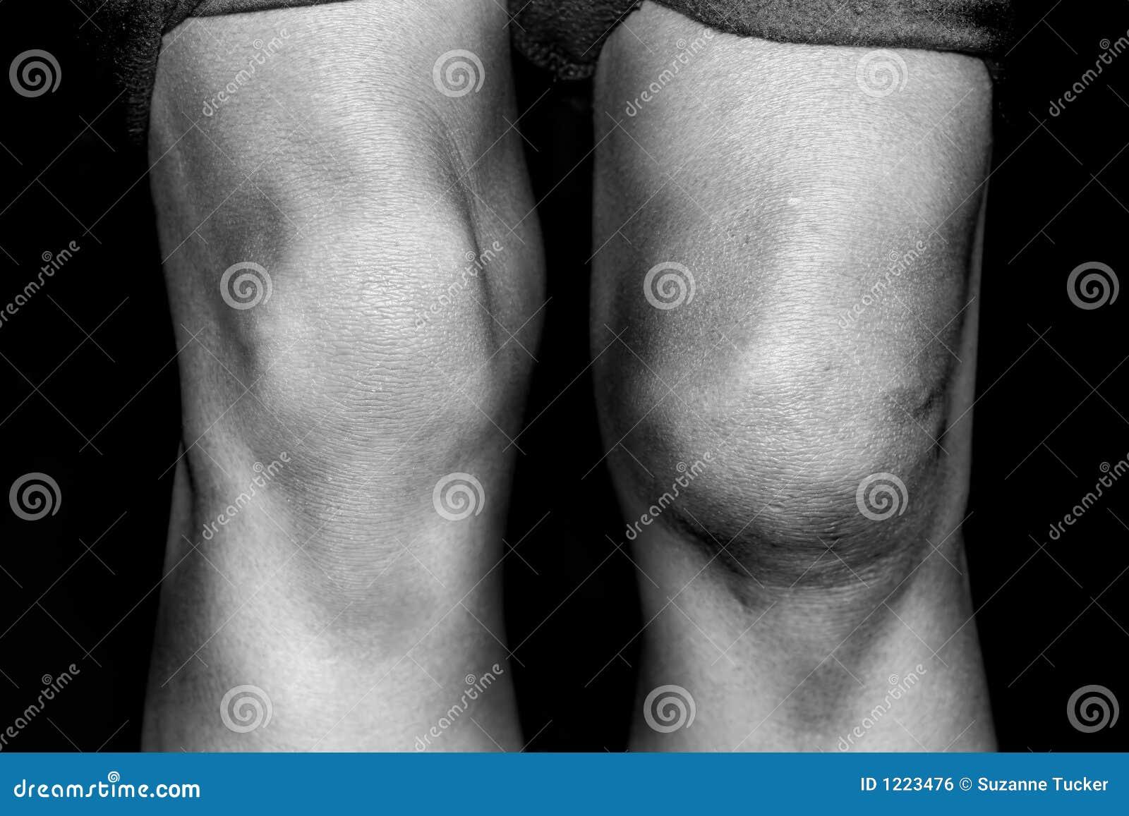 Résulter patellaire médial déchiré d une dislocation de genou