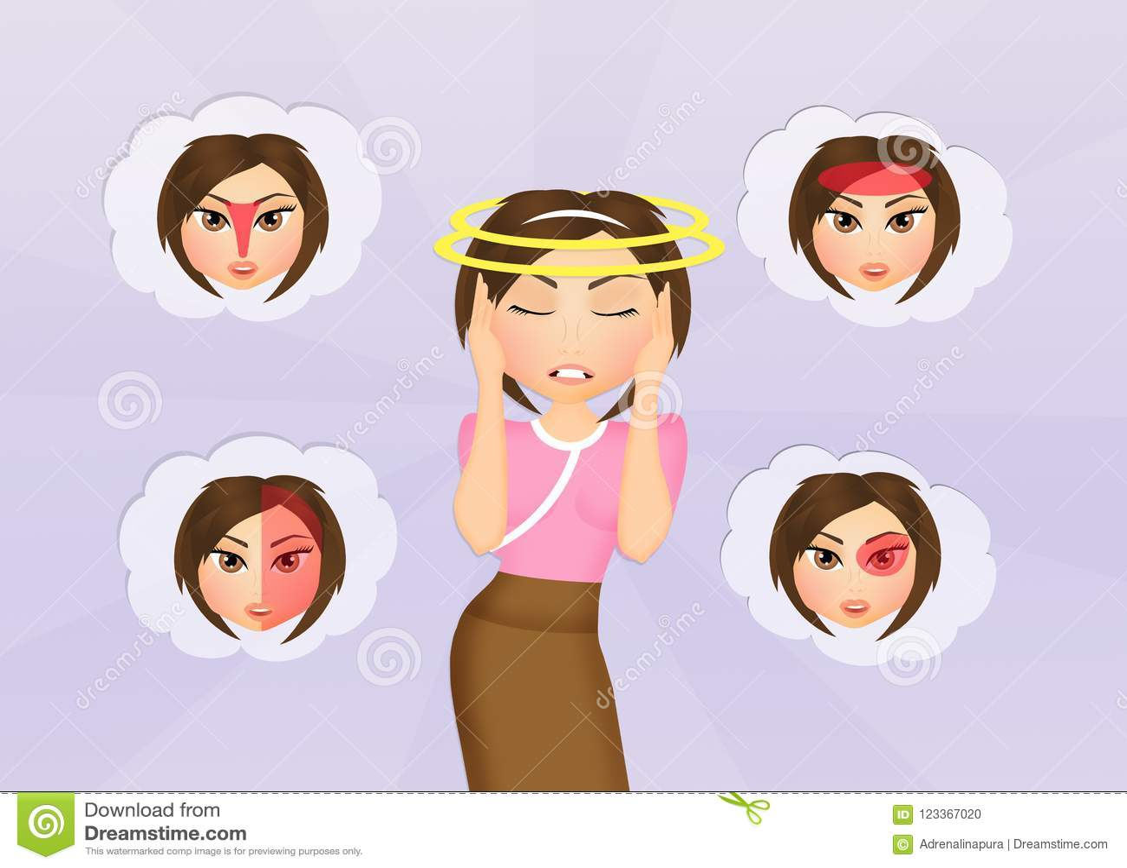 Różnorodni typ migrena