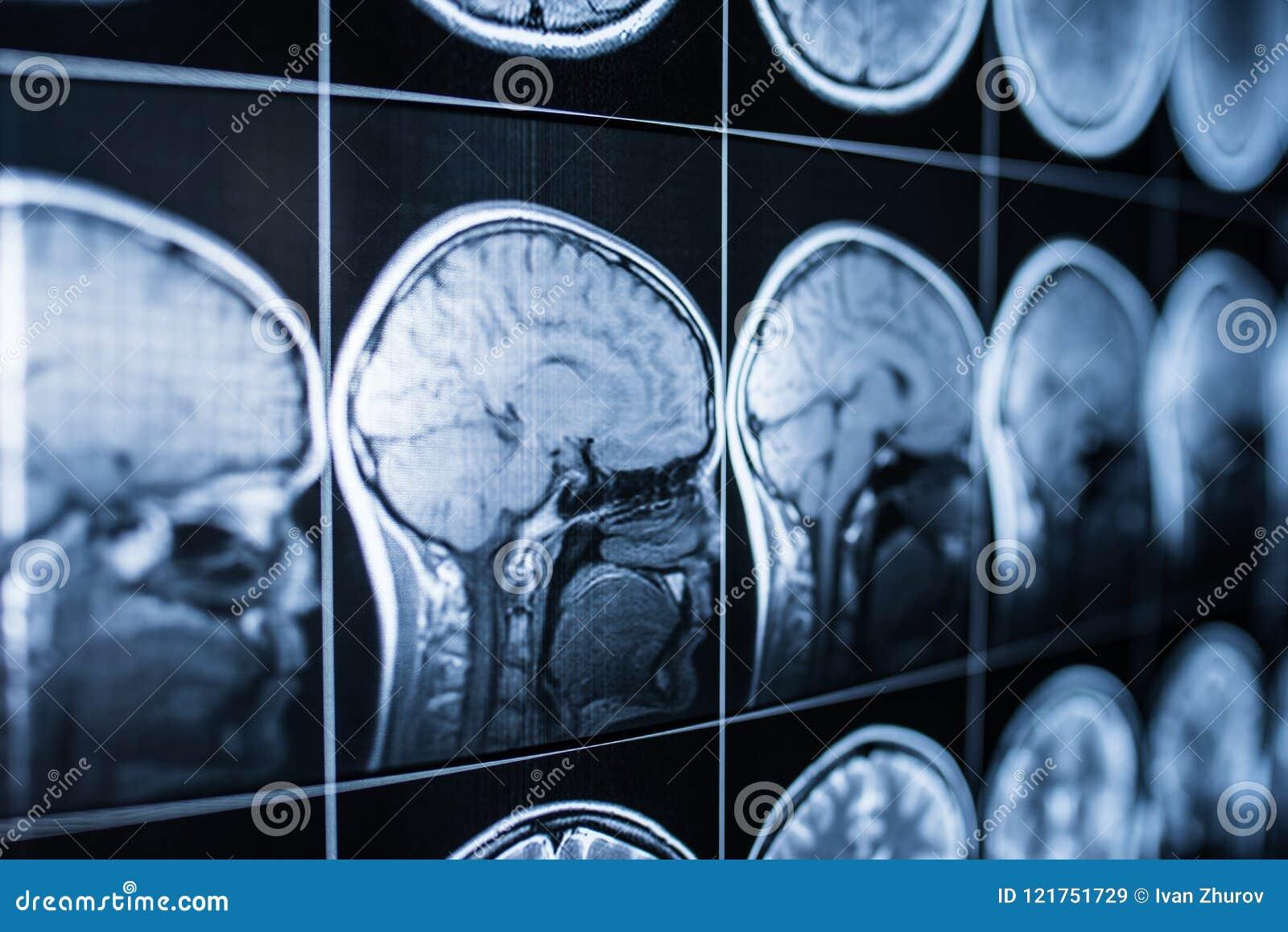 Röntgenstråle av huvudet och hjärnan av en person