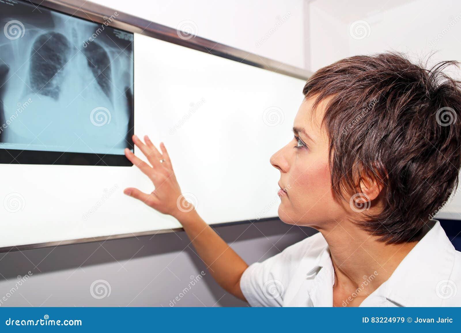 förkalkning i lungan