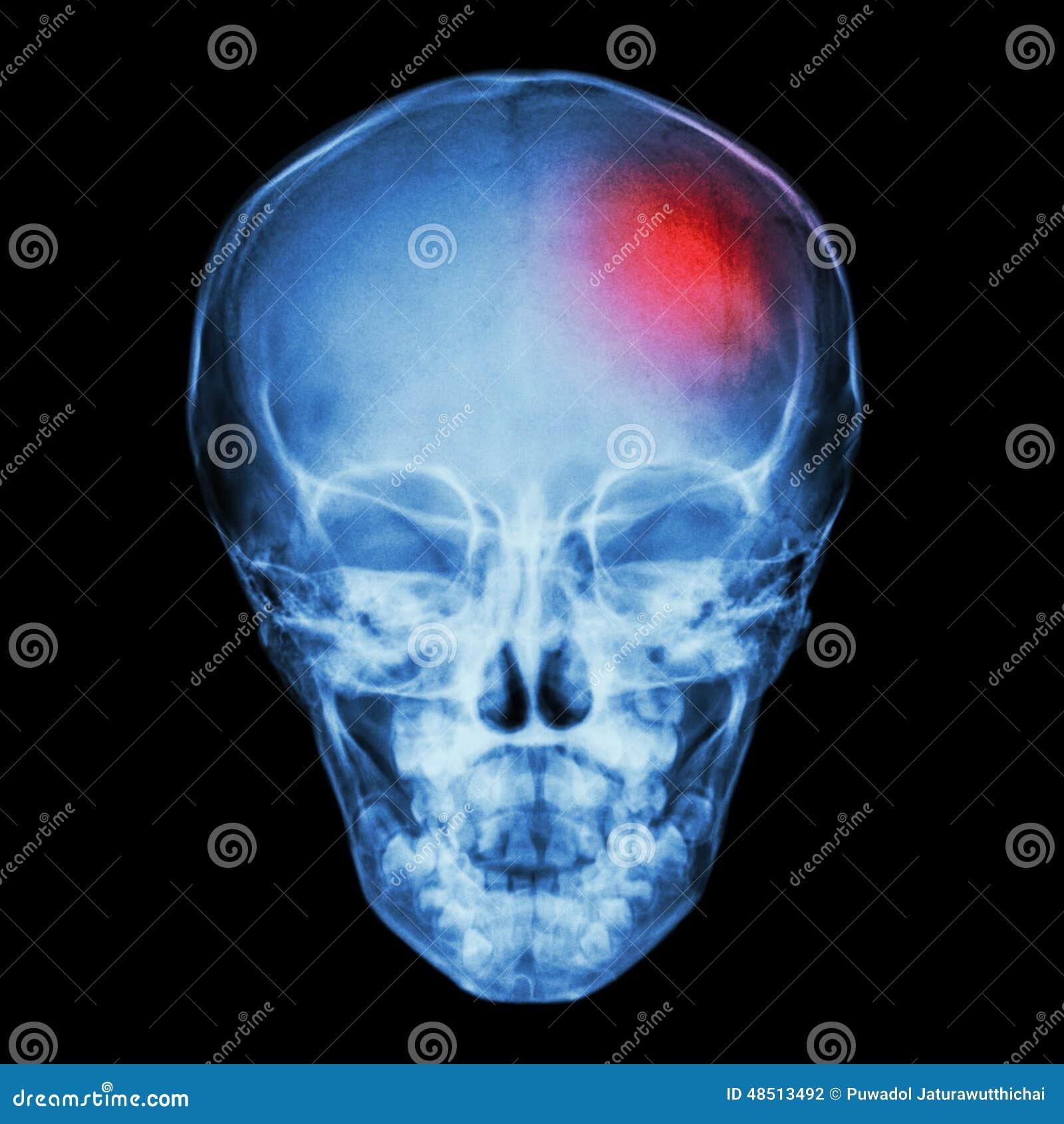 Röntgenstråleskalle av barnet och slaglängden (den cerebrovascular olyckan)