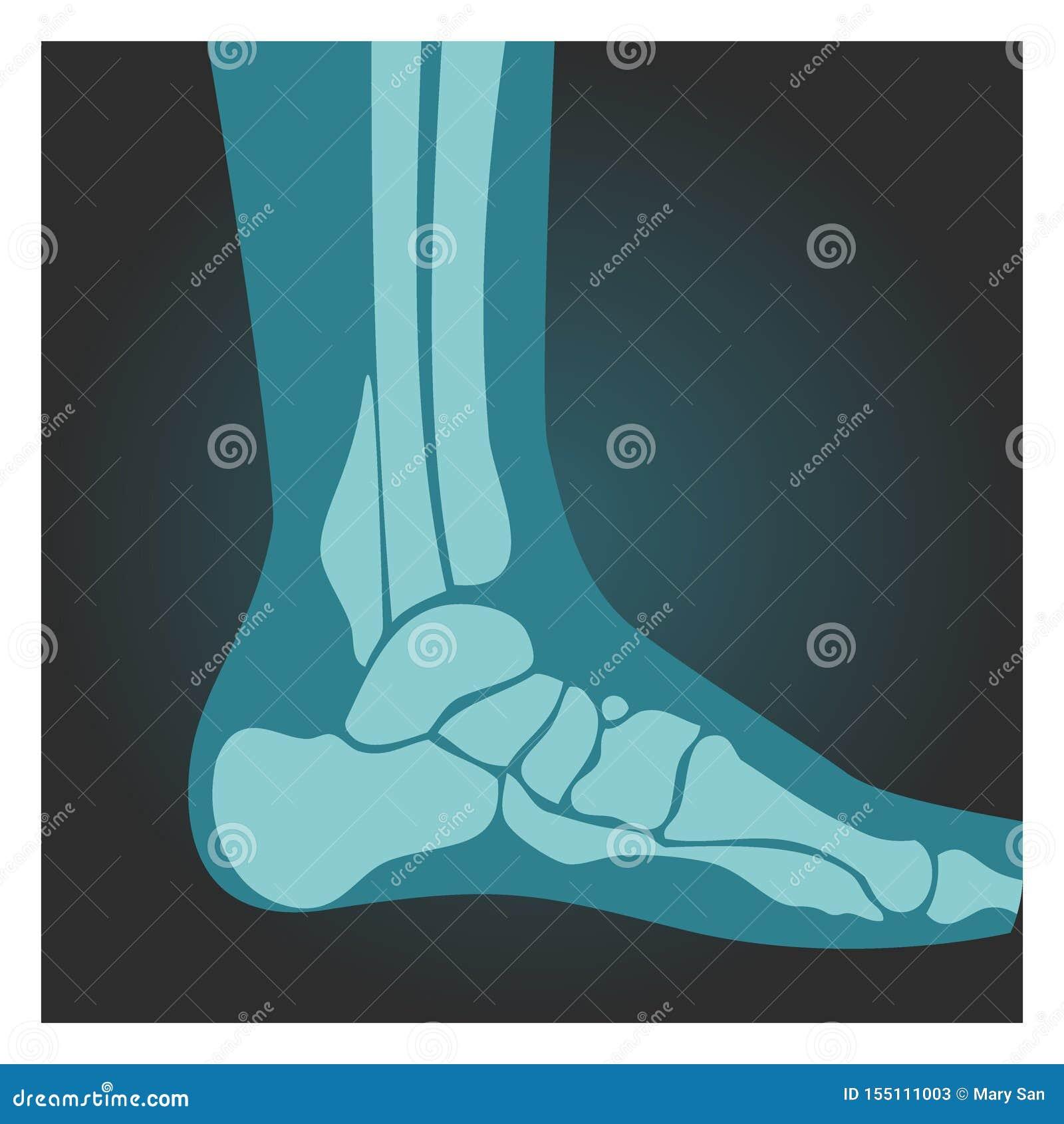Röntgenstråleskott av fotsidosikten, människokropp, ben, röntgenfotografering, vektorillustration