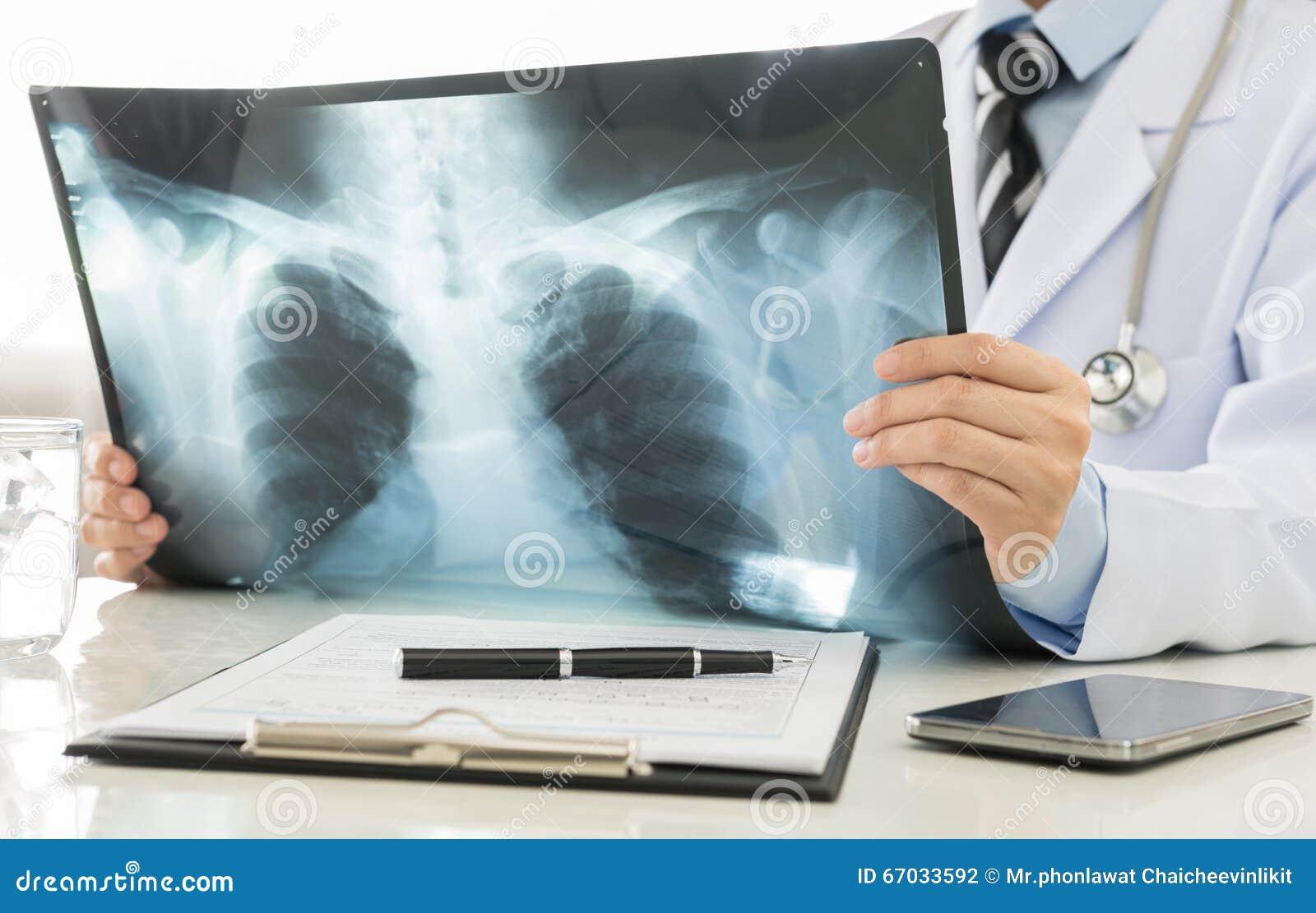 Röntgenstraal
