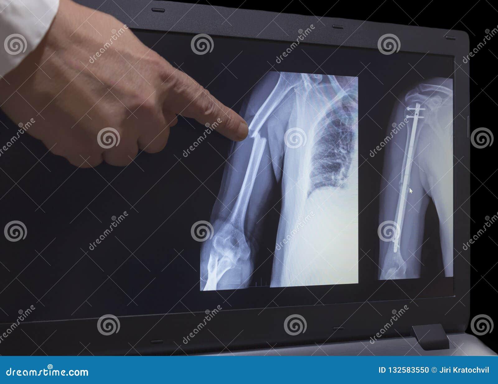 Röntgenstraal van breuk van een hand en hand na verrichting