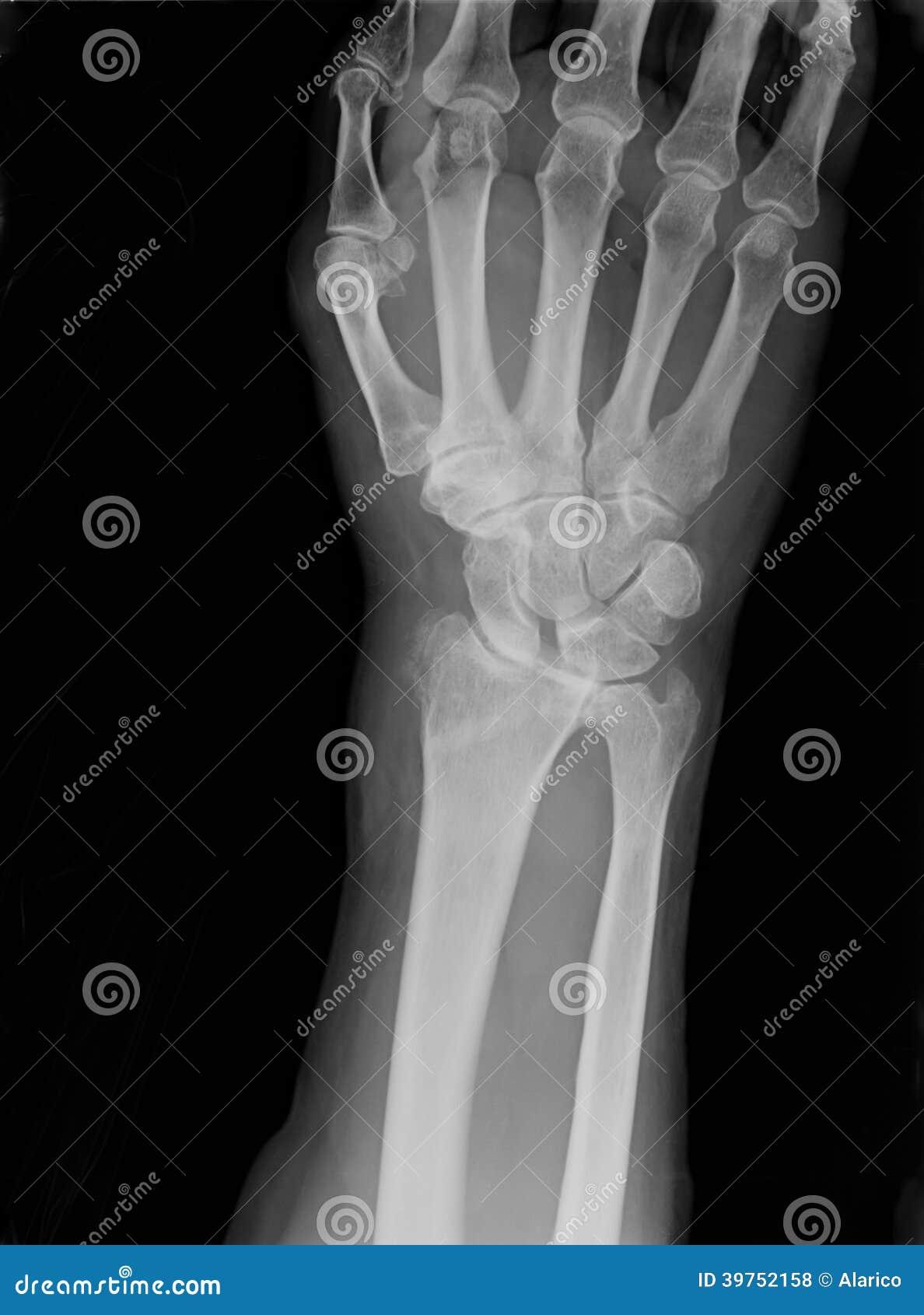 Röntgenstraal van epiphysial radiale die breuk met permanente synthetische middelen wordt verminderd
