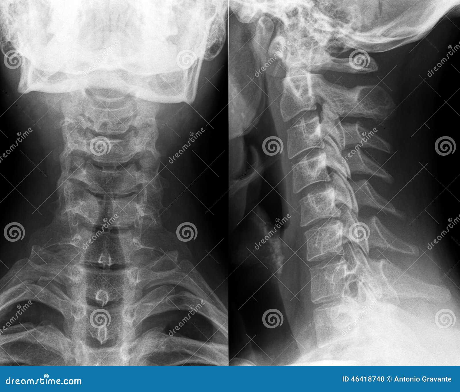 Röntgenstraal van hals en cervicale stekel