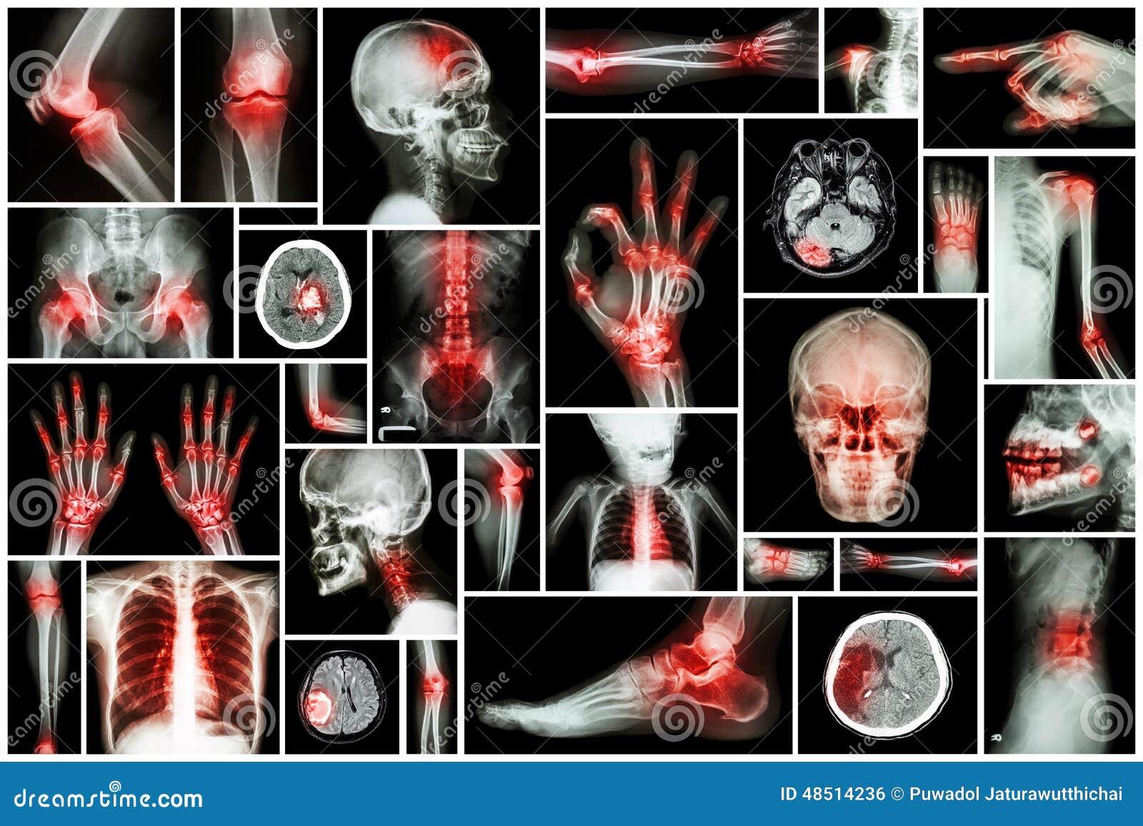Röntgenstraal veelvoudig deel van mens met veelvoudige ziekte (slag, artritis, jicht, reumatoïde, hersenentumor, osteoartritis, e