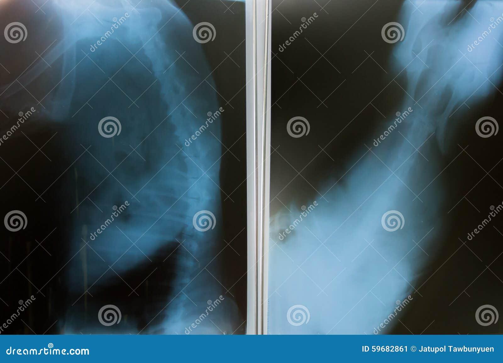 Röntgenstraal voor hond