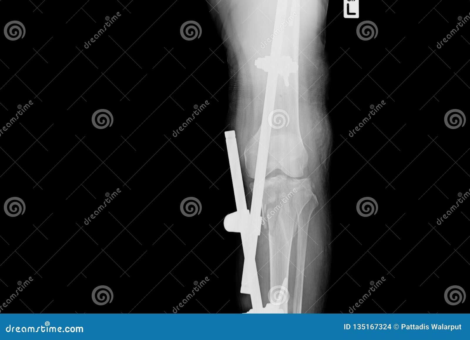 Röntgenstraalbeeld van breukbeen met implant externe bevestiging