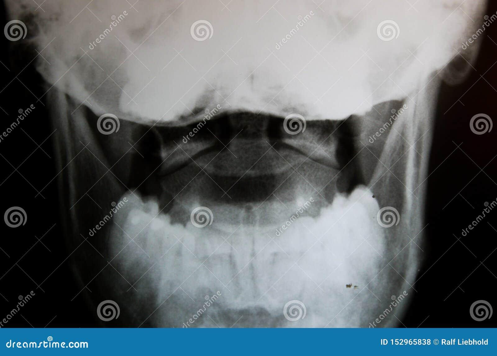 Röntgenstraalbeeld van schedel met nadruk op hoofdverbindingenatlas en as