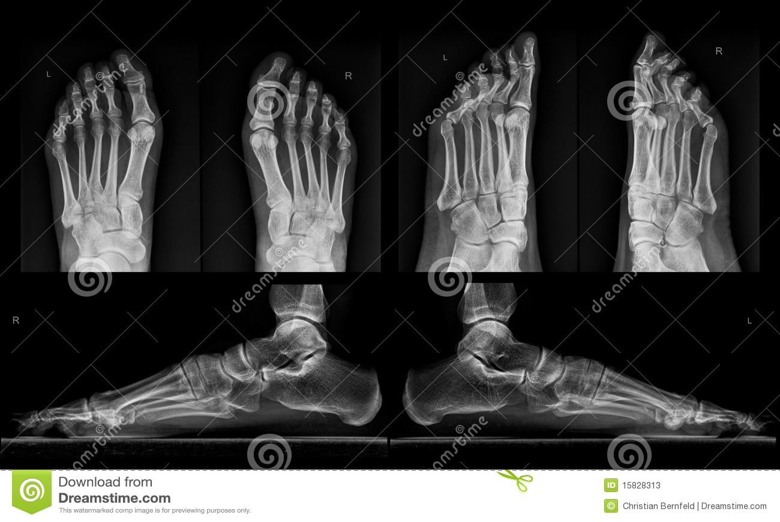 Röntgenstrahl beider Füße in drei Projektionen
