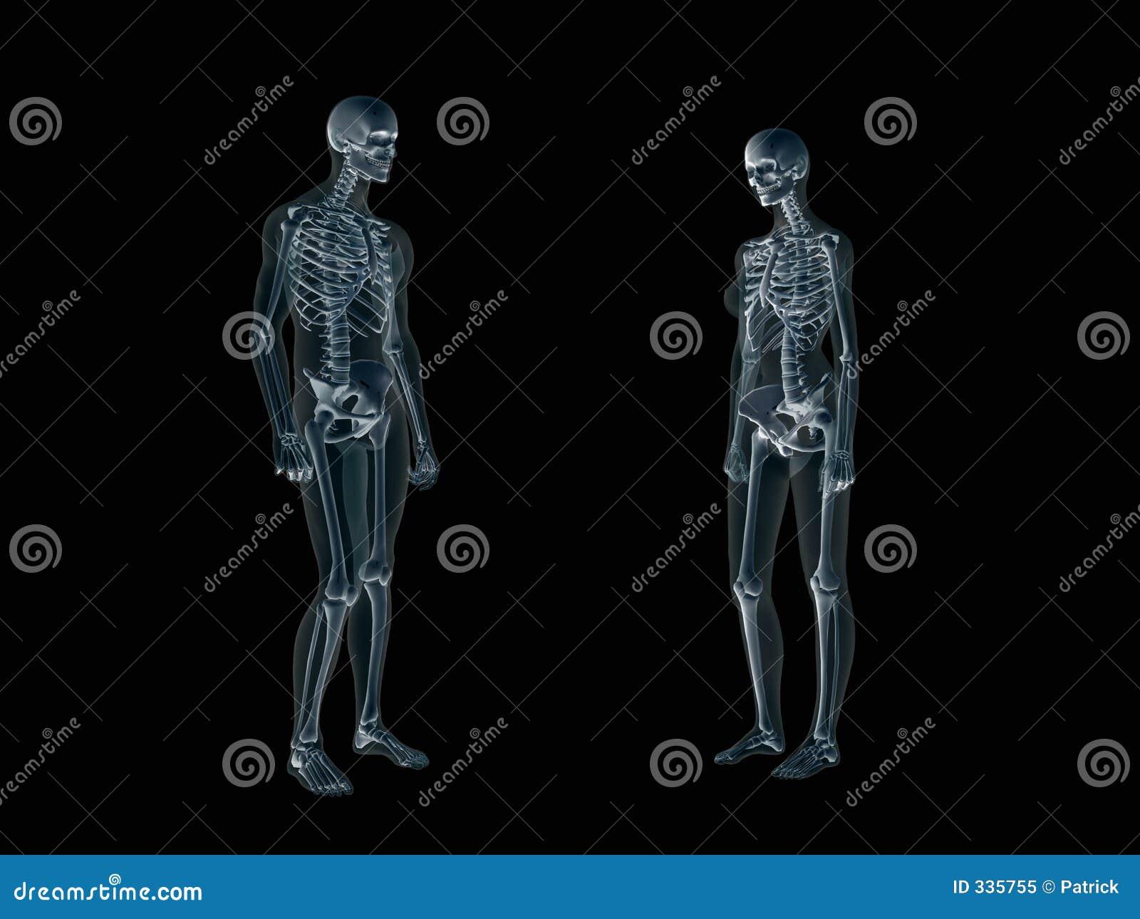 Röntgenstrahl, Röntgenstrahl Des Menschlichen Körpers, Mann Und Frau ...