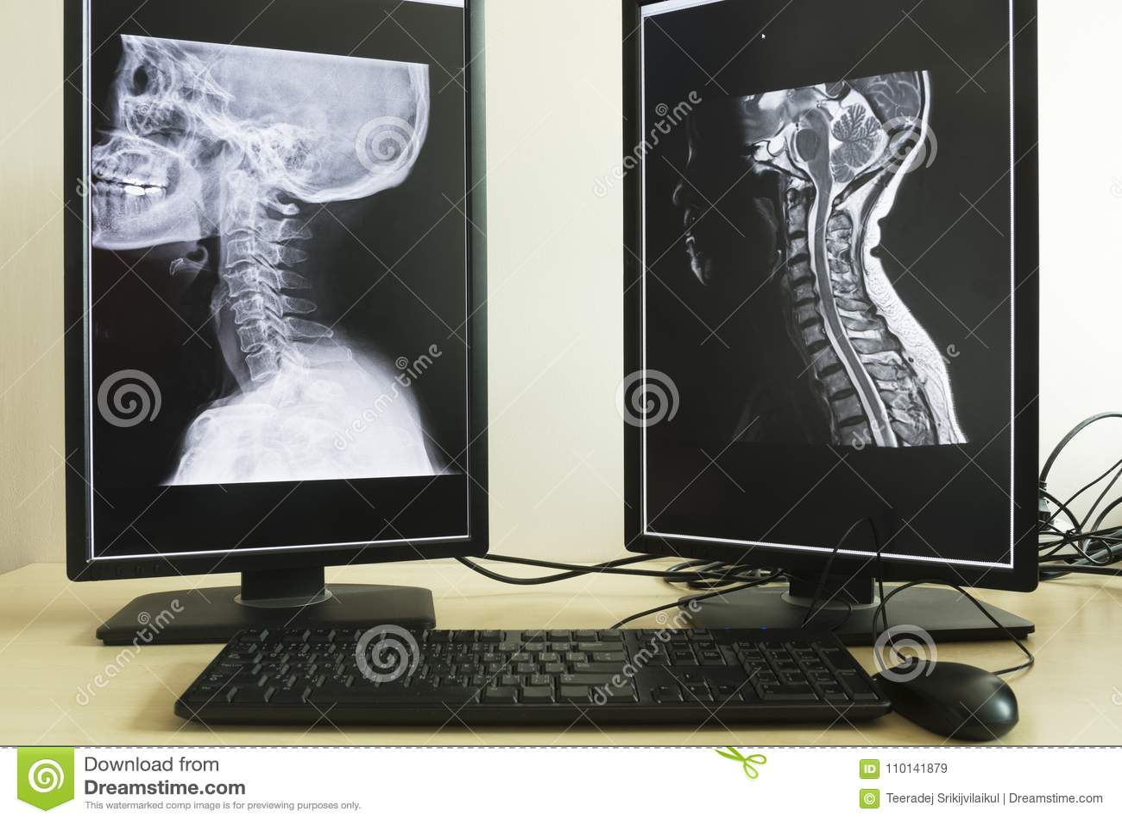 Röntgenstrahl und MRI des Halses in Doktorbüro