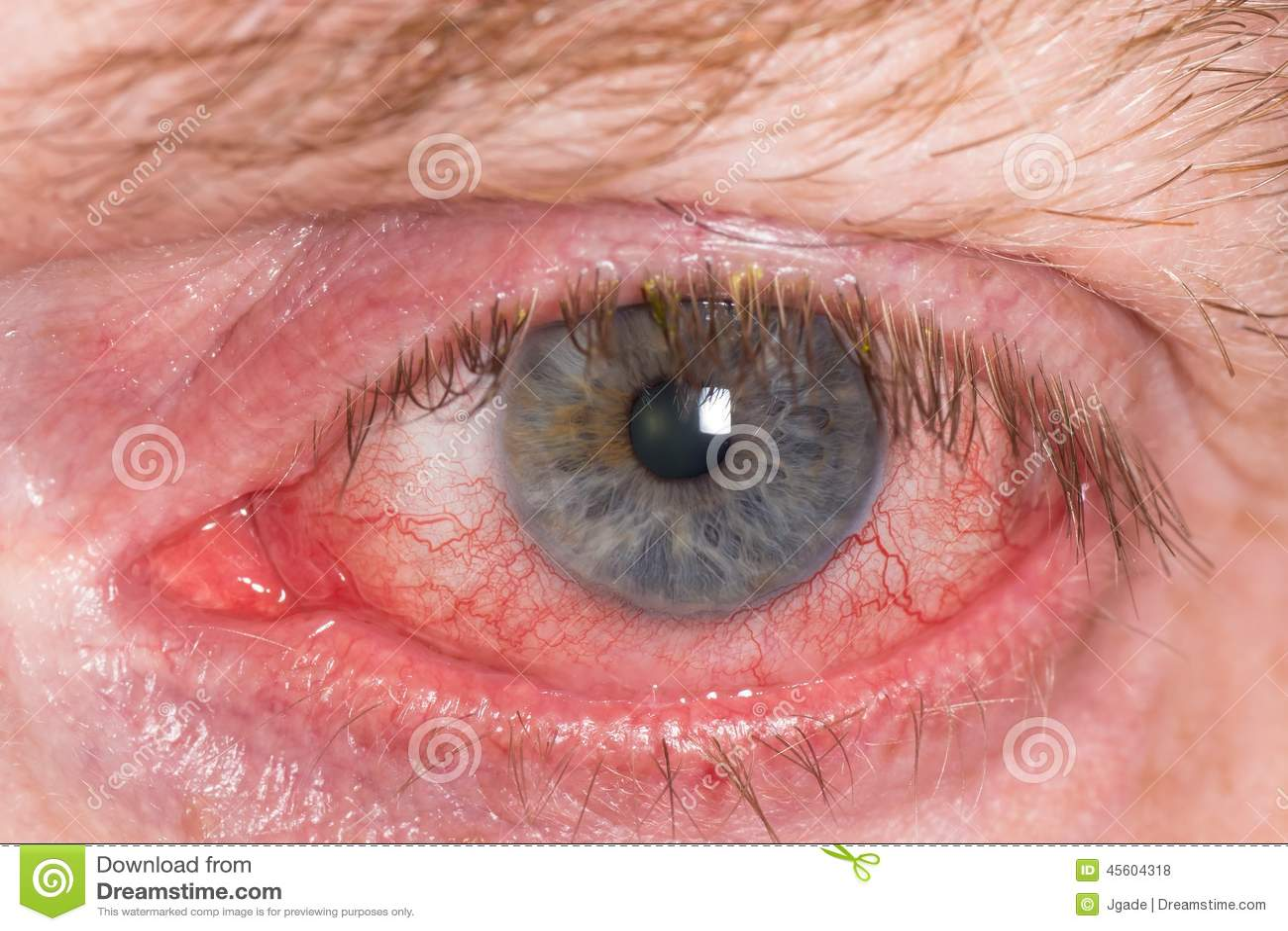 Irritation i ögat