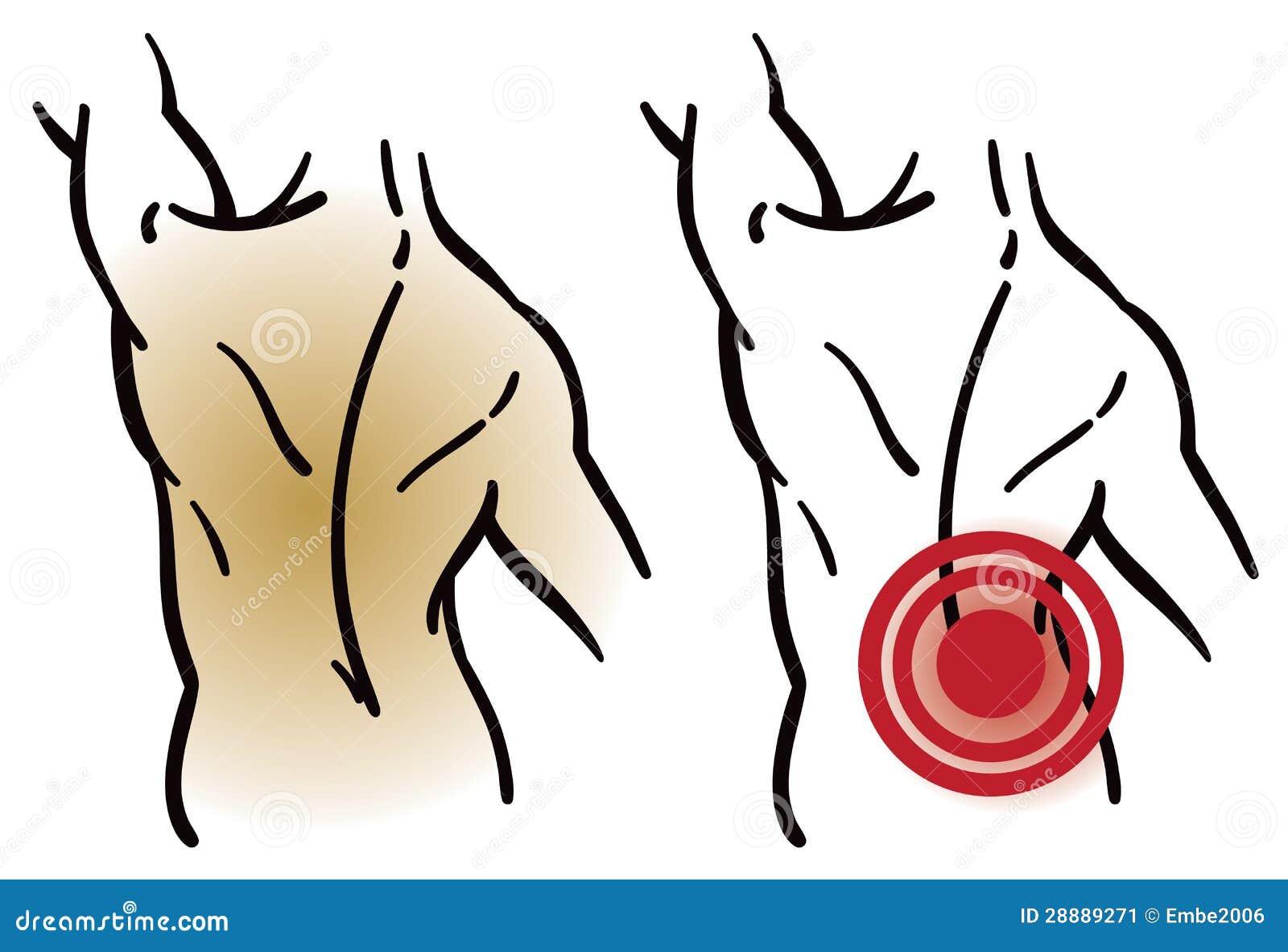 Rückenmuskel-Schmerz vektor abbildung. Illustration von erhöhung ...