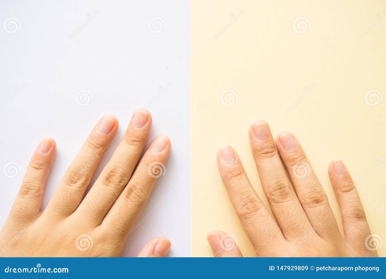 Ręka na białym tle i koloru żółtego tle