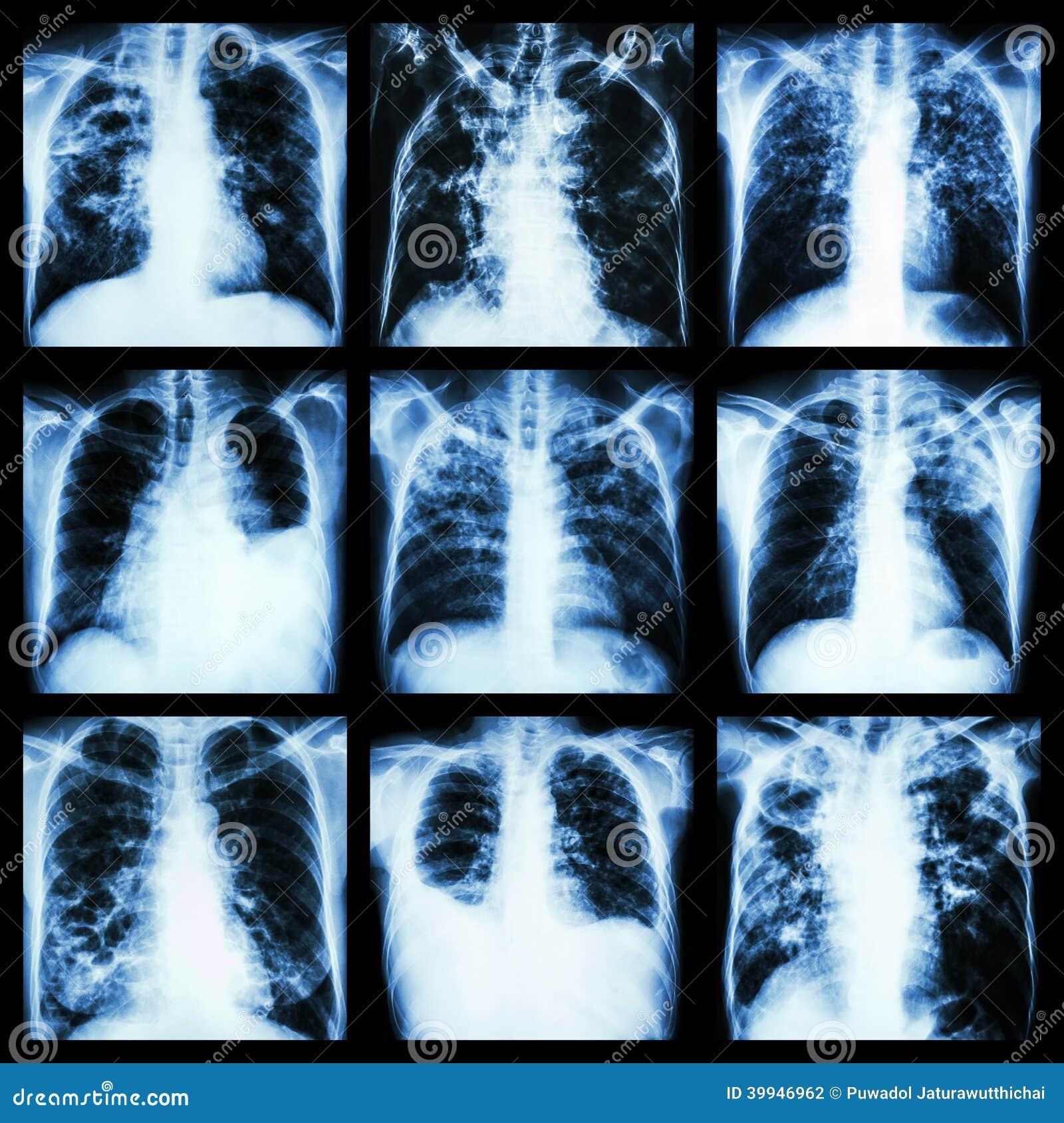 Raccolta dell affezione polmonare (tubercolosi polmonare, versamento pleurico, bronchiettasia)
