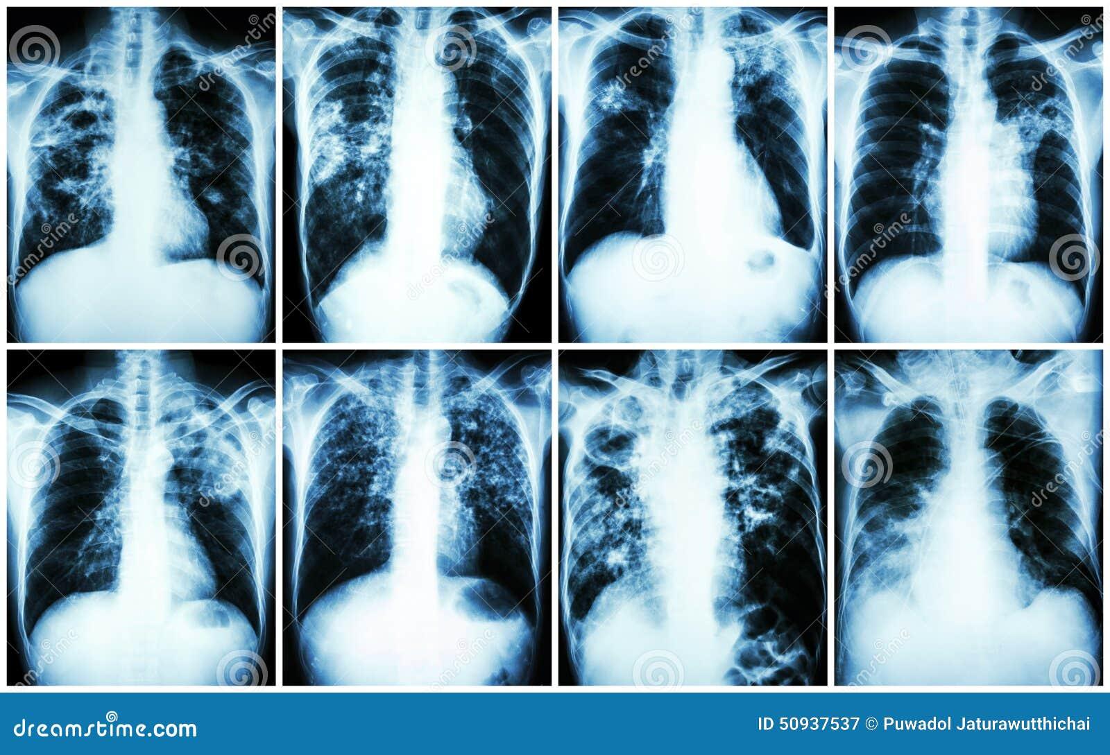 Raccolta di tubercolosi polmonare Esame radiografico del torace: mostri l infiltrazione irregolare, l infiltrazione interstiziale