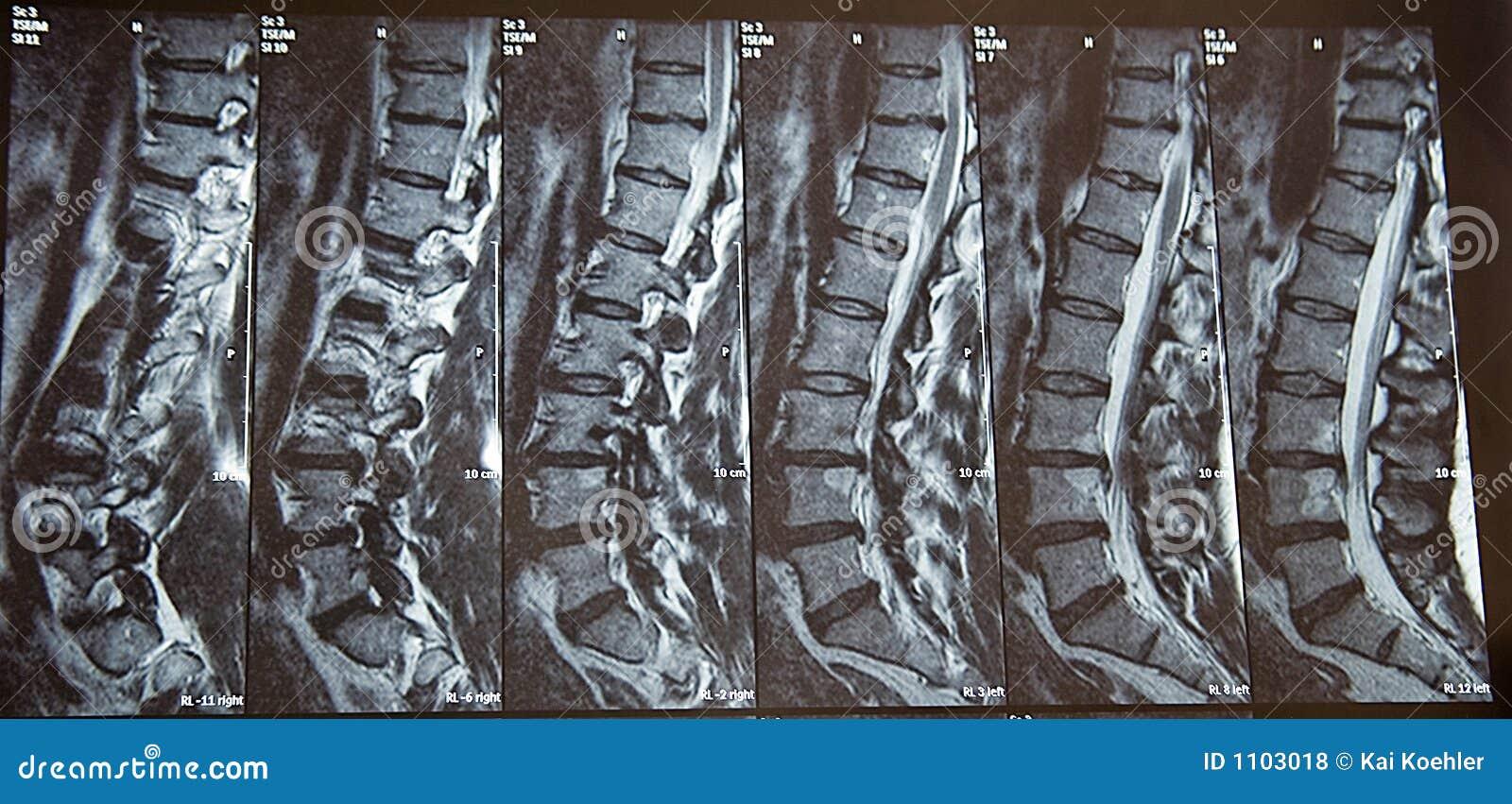 Radiografía foto de archivo. Imagen de rayo, mujer, diagnostic - 1103018