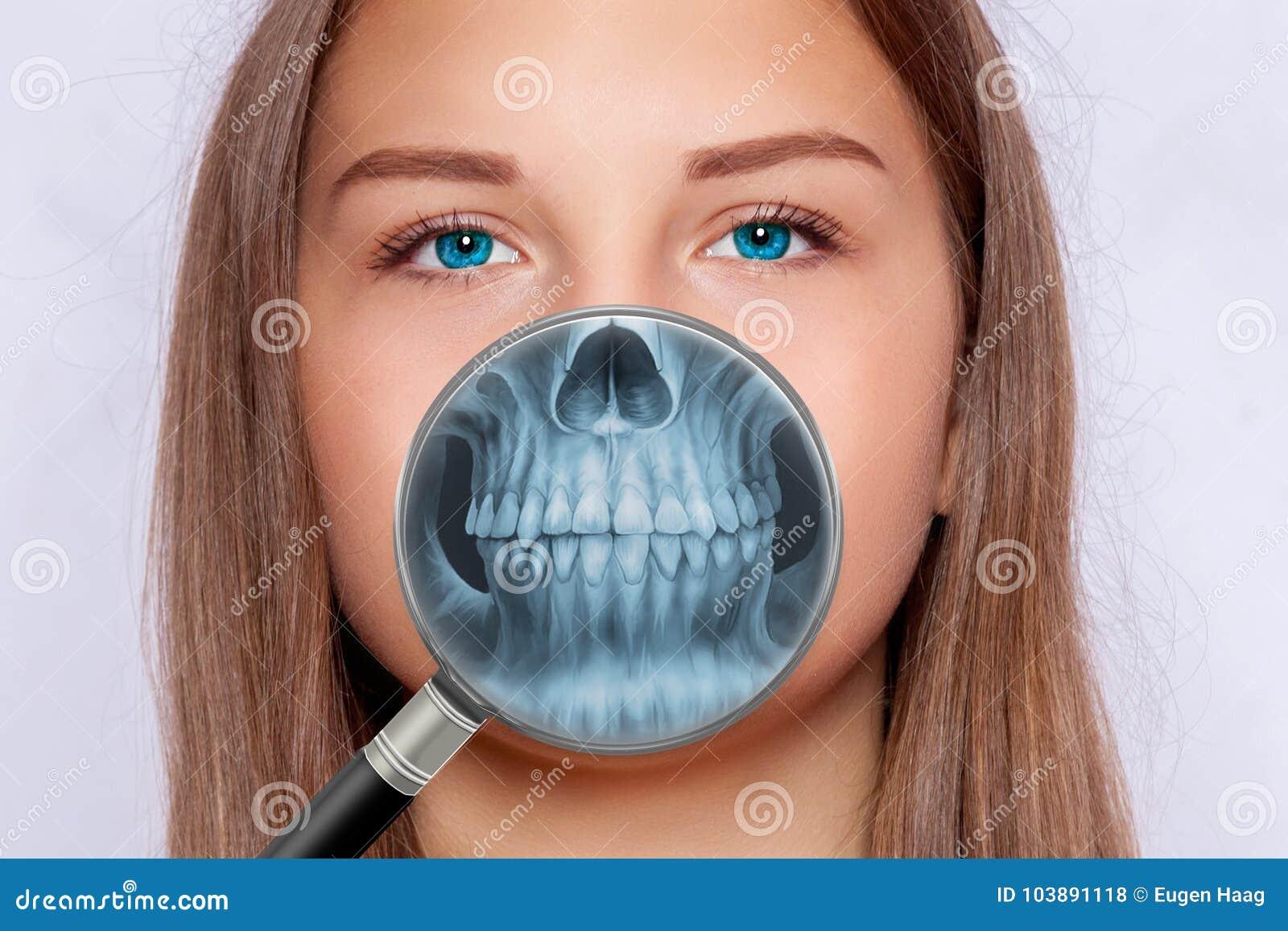 Radiografía De La Cara, Odontología, Mujer Foto de archivo - Imagen ...