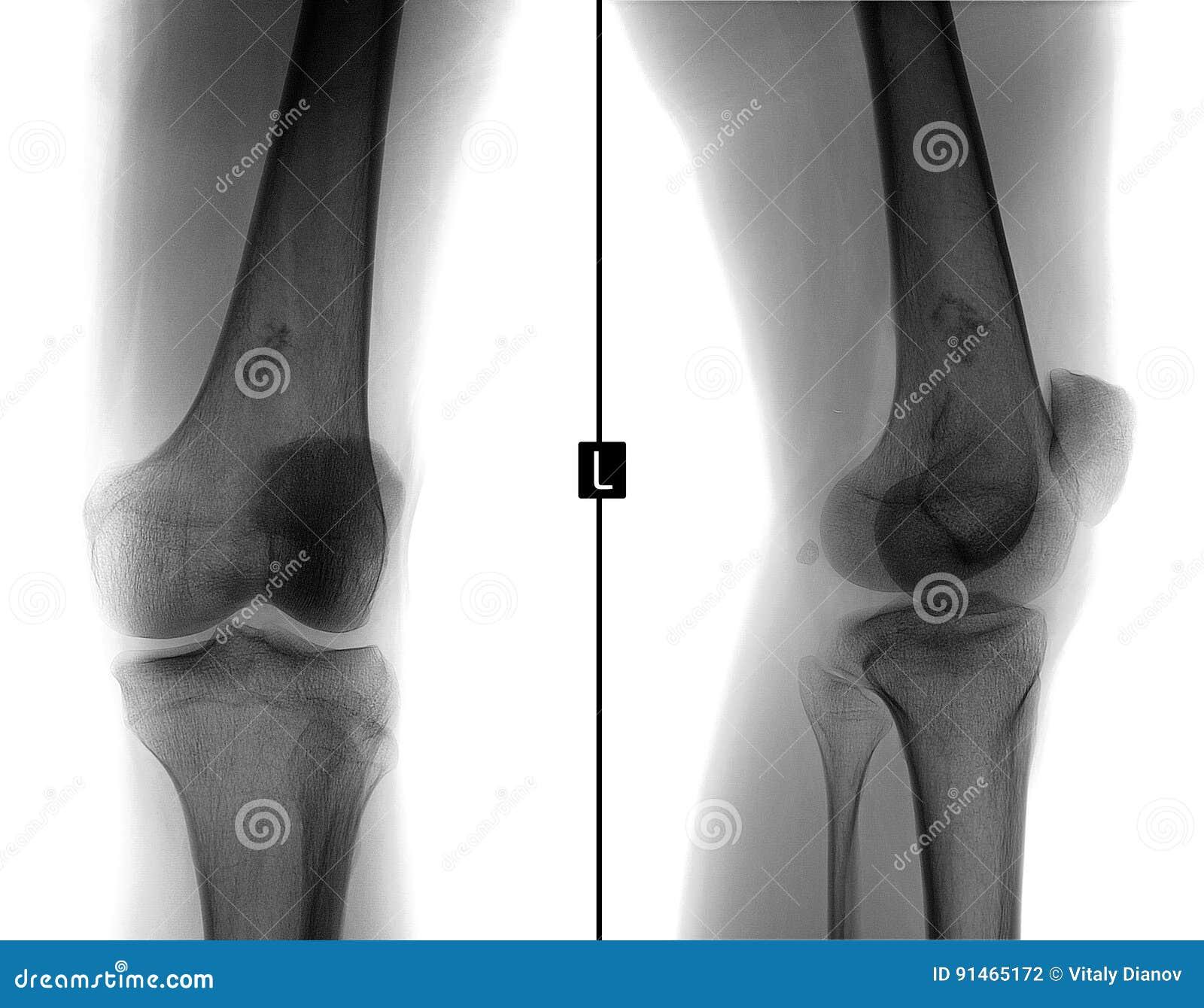 Radiografía De La Junta De Rodilla Izquierda Sarcoma De Ewing ...