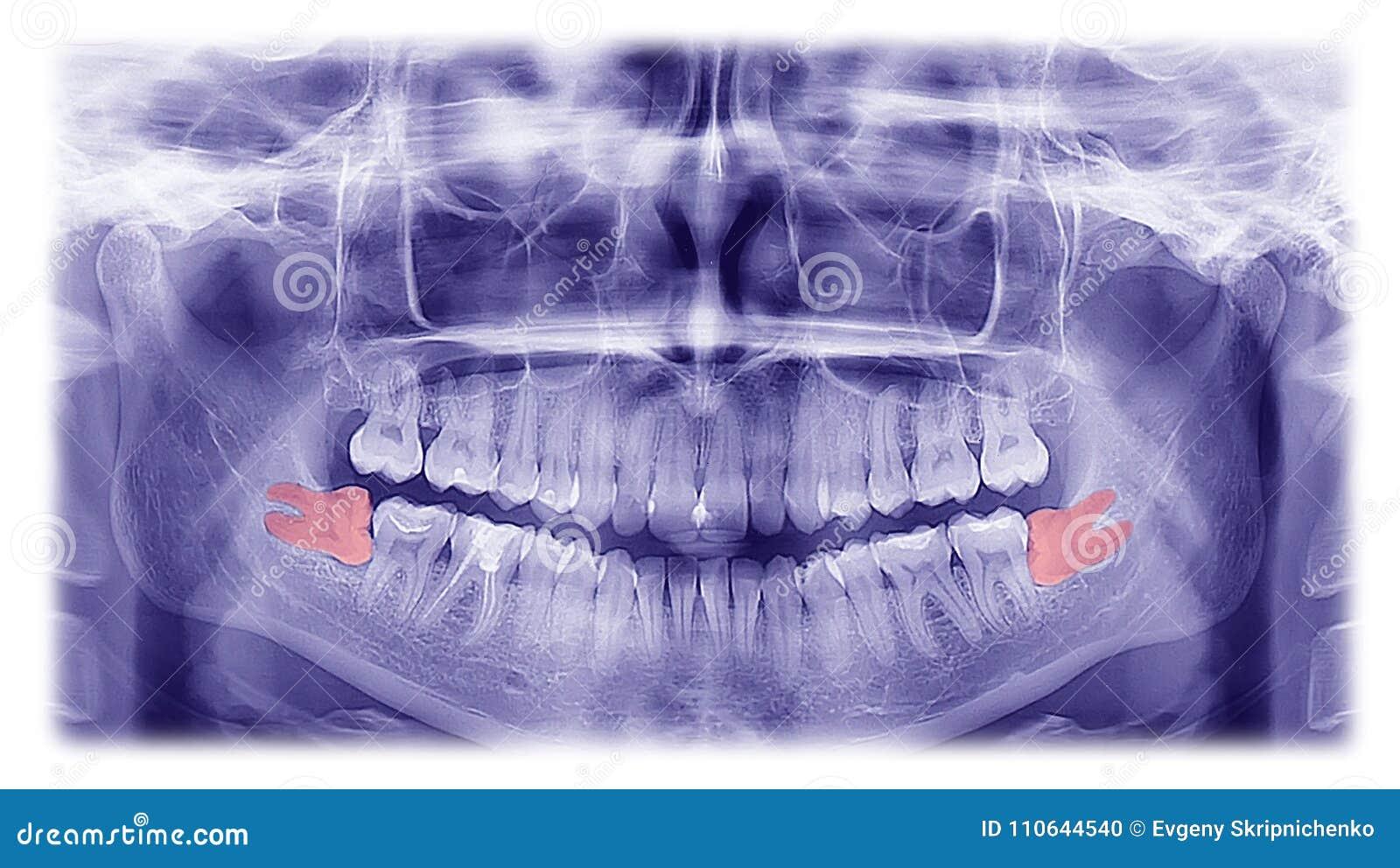 Radiografía De La Mujer Del Pozition Horizontal De Los Dientes De ...