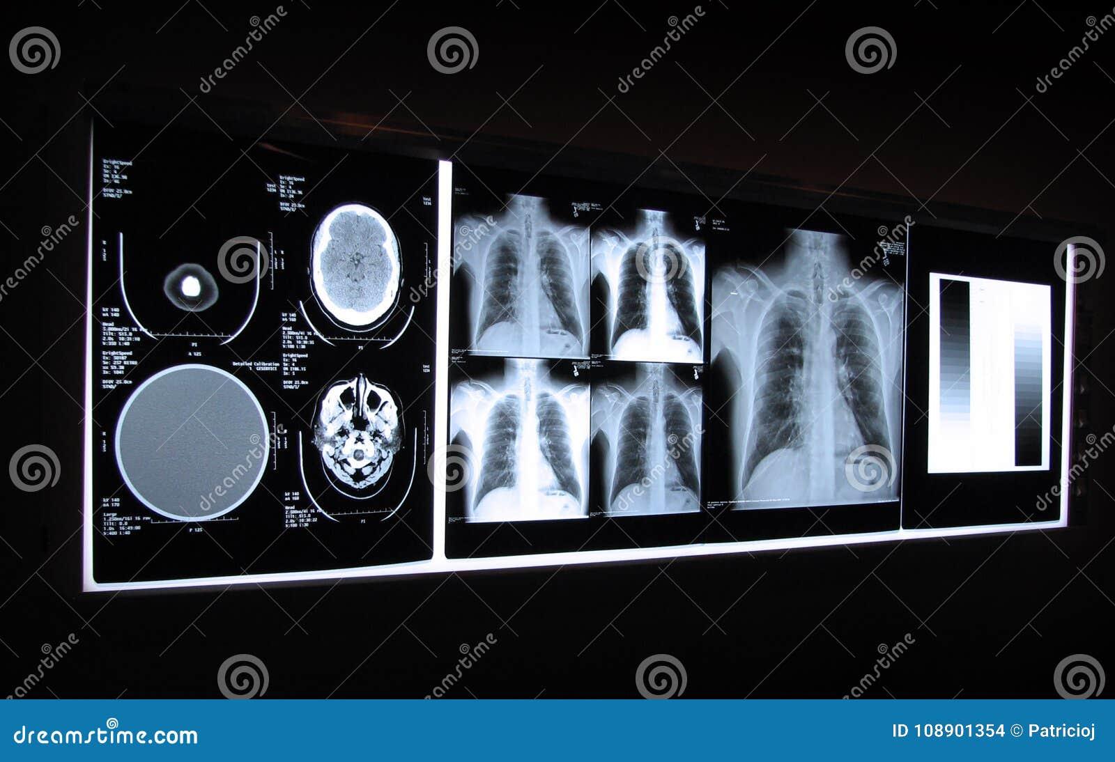 Radiografía del cerebro y del pecho en un tablero ligero