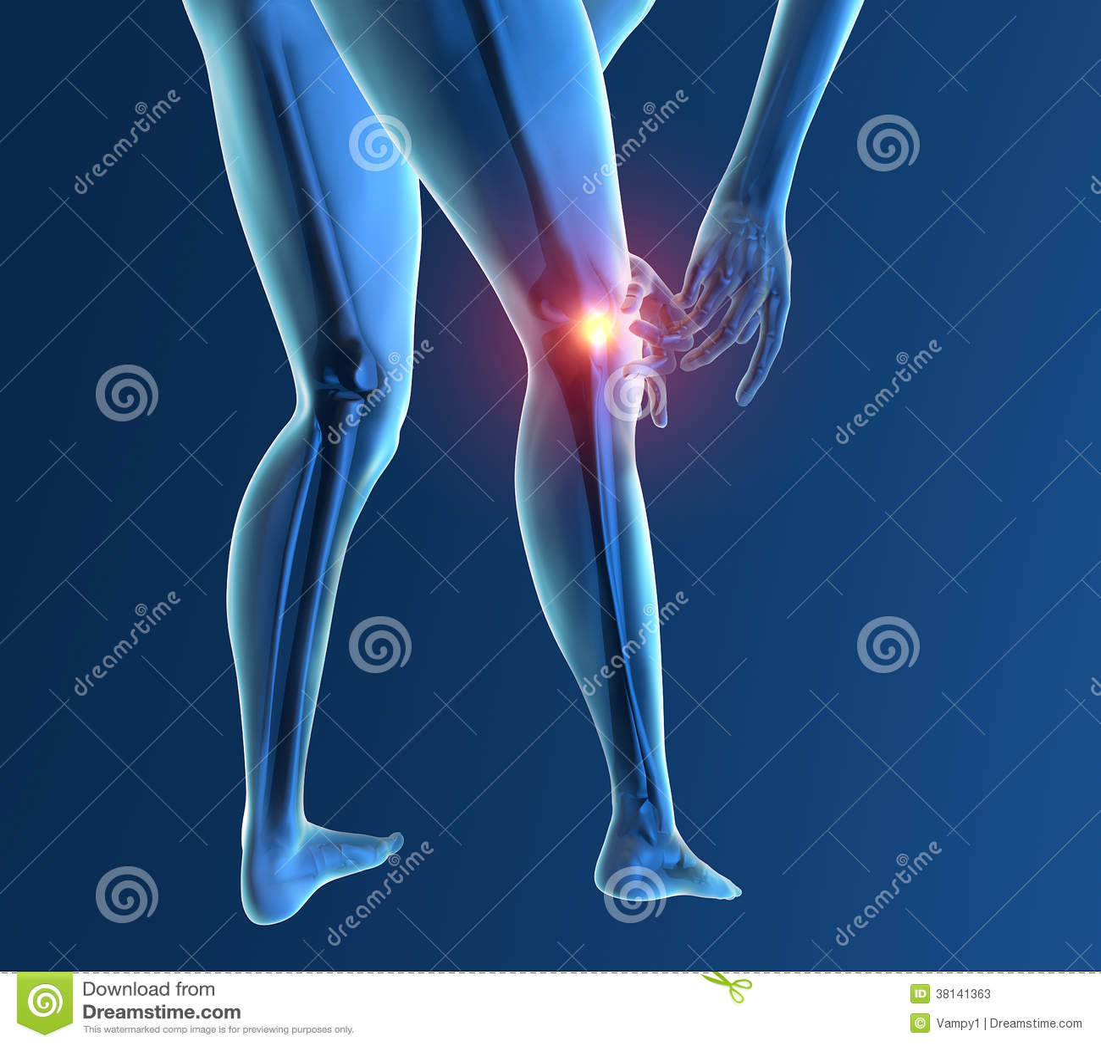 Radiograf A Del Esqueleto De La Rodilla Del Dolor De La  # Muebles Rodilla