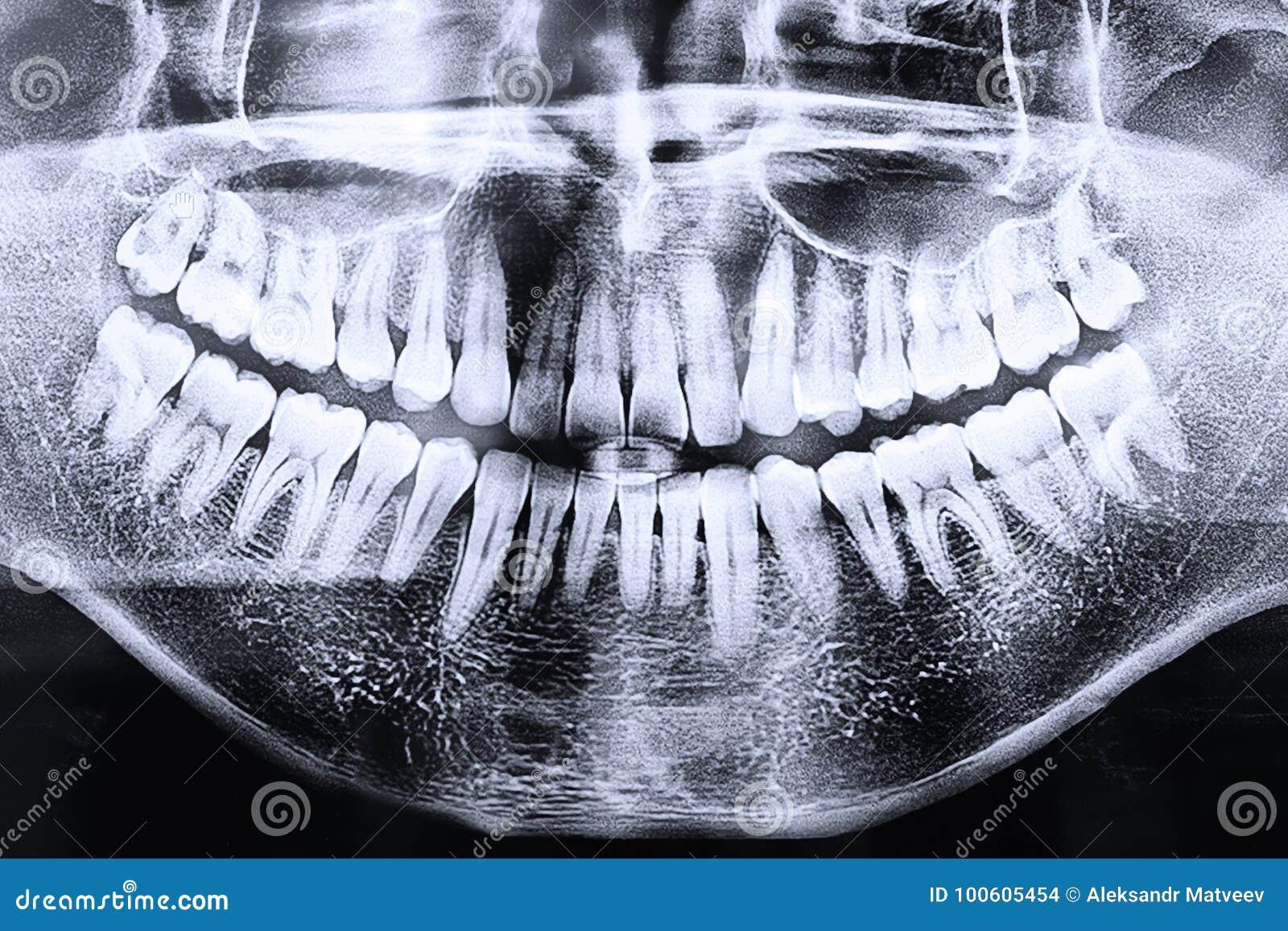 Radiografía Dental De La Anatomía Panorámica De La Anatomía Foto de ...