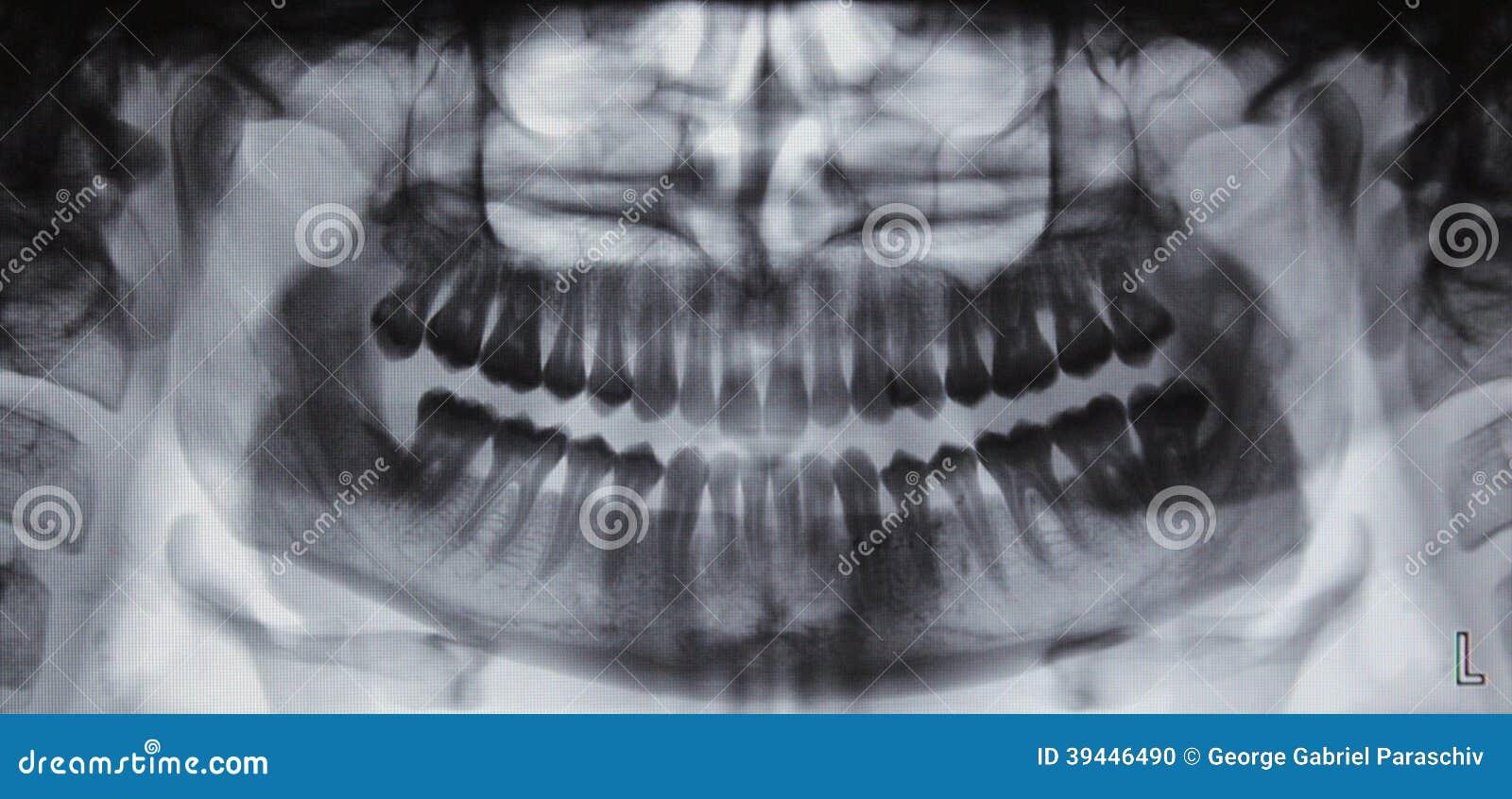 Radiografía Dental Panorámica - 31 Dientes Foto de archivo - Imagen ...
